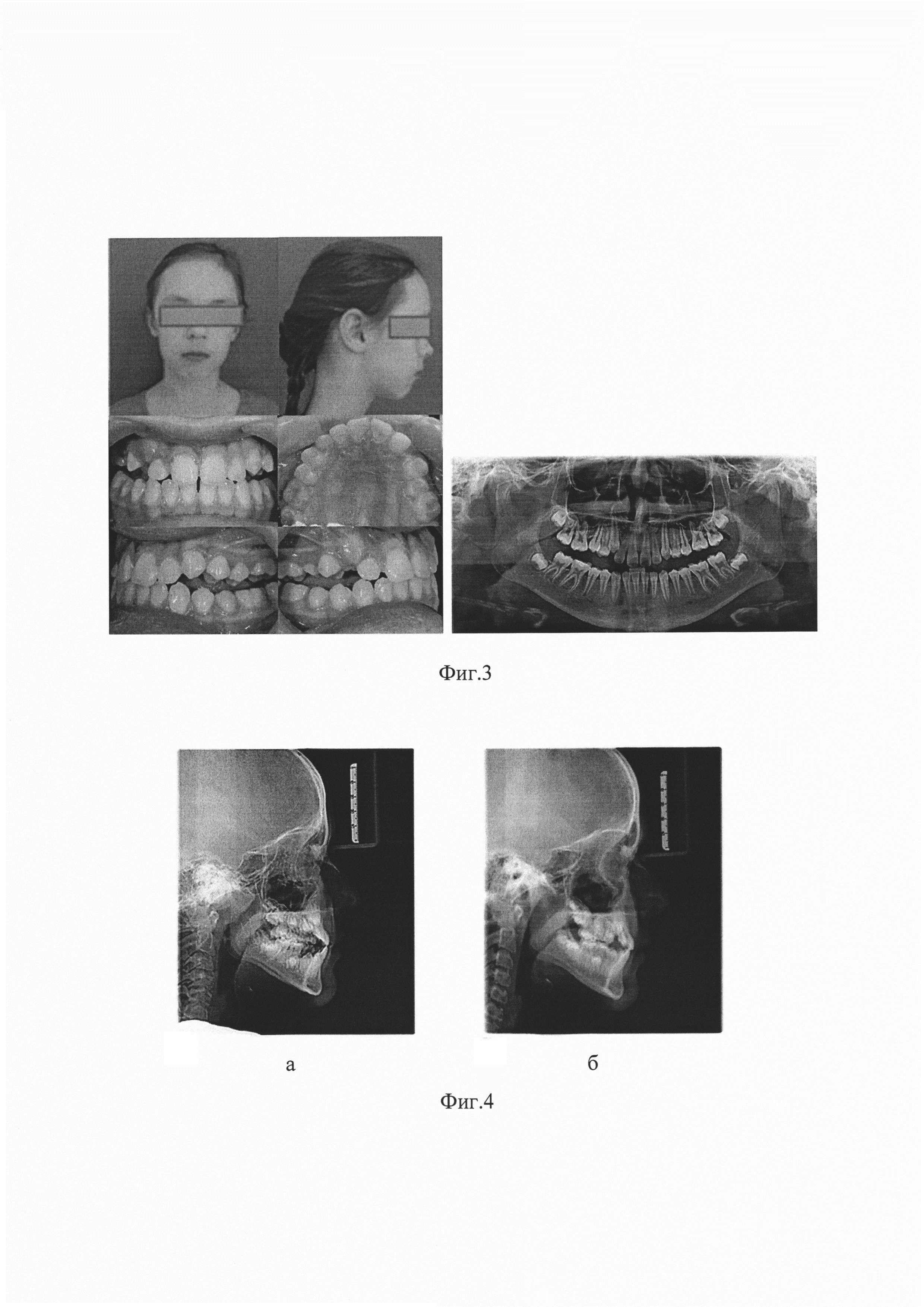 Способ лечения фронтального сужения верхней челюсти
