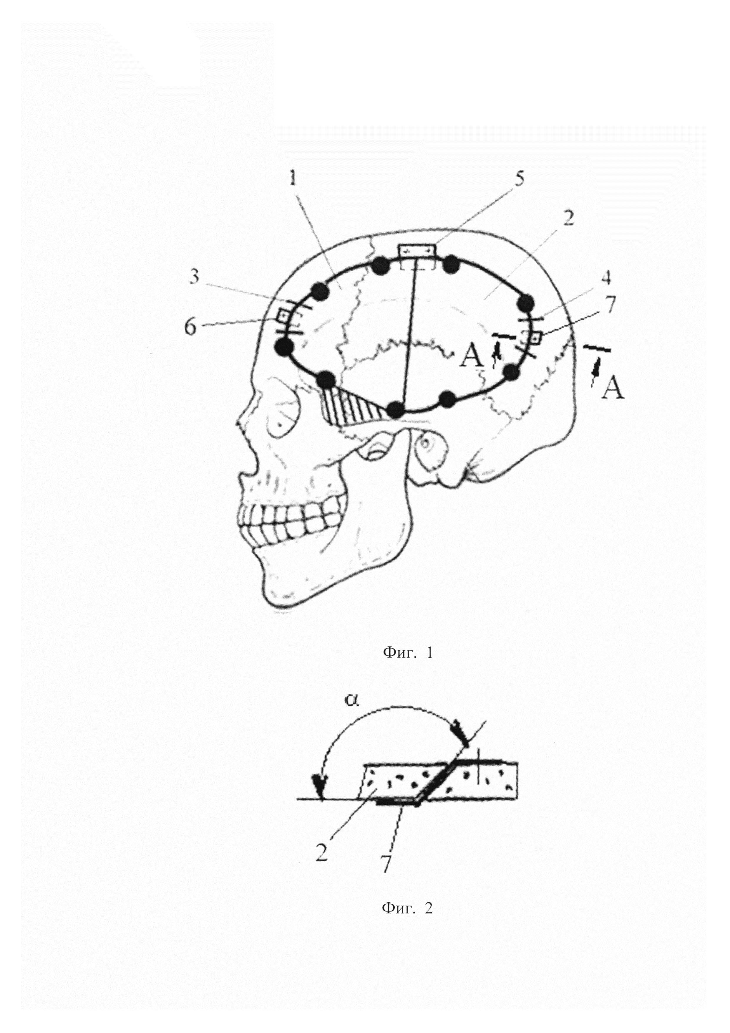 Способ створчатой трепанации черепа