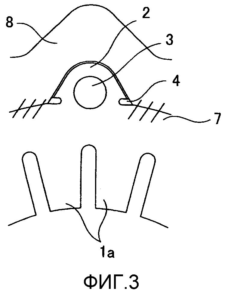Крепежная конструкция статора