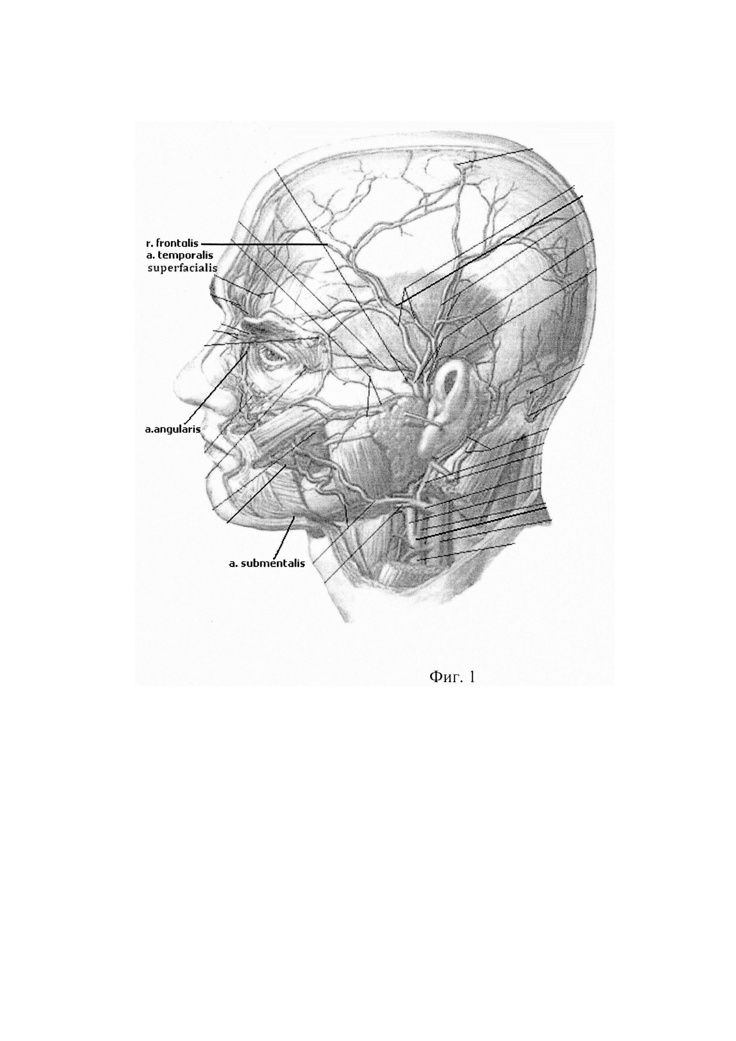 Способ оценки косметологических процедур на коже лица
