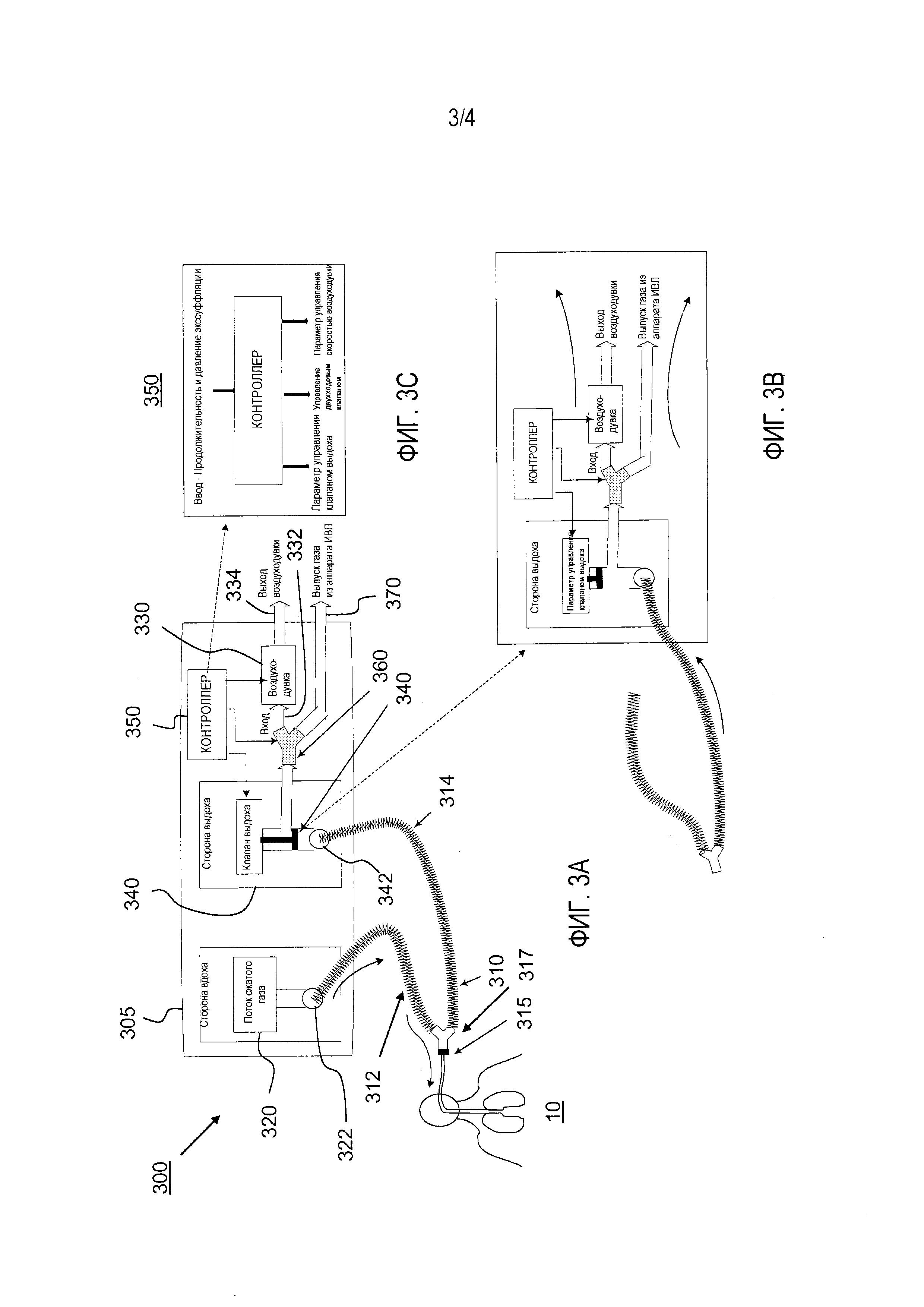 Аппарат искусственной вентиляции легких с интегрированной воздуходувкой