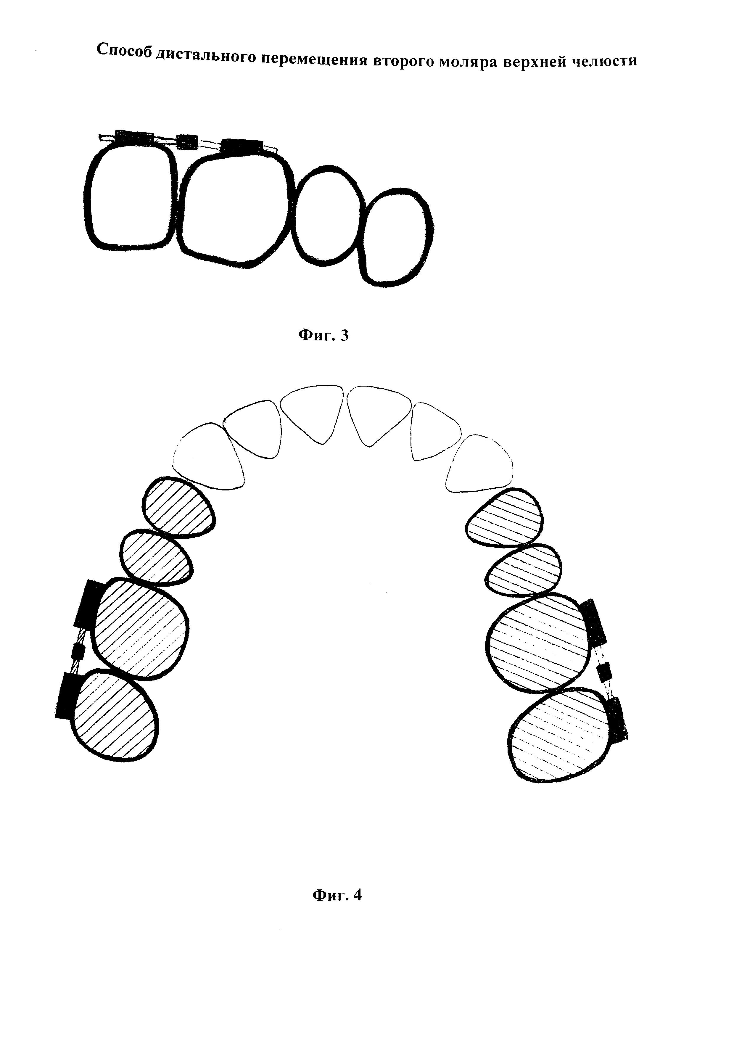 Способ дистального перемещения второго моляра верхней челюсти