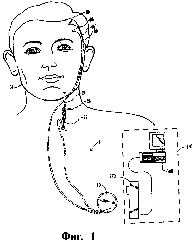 Способ лечения расстройств пищевого поведения посредством нейростимулирующей системы (варианты)