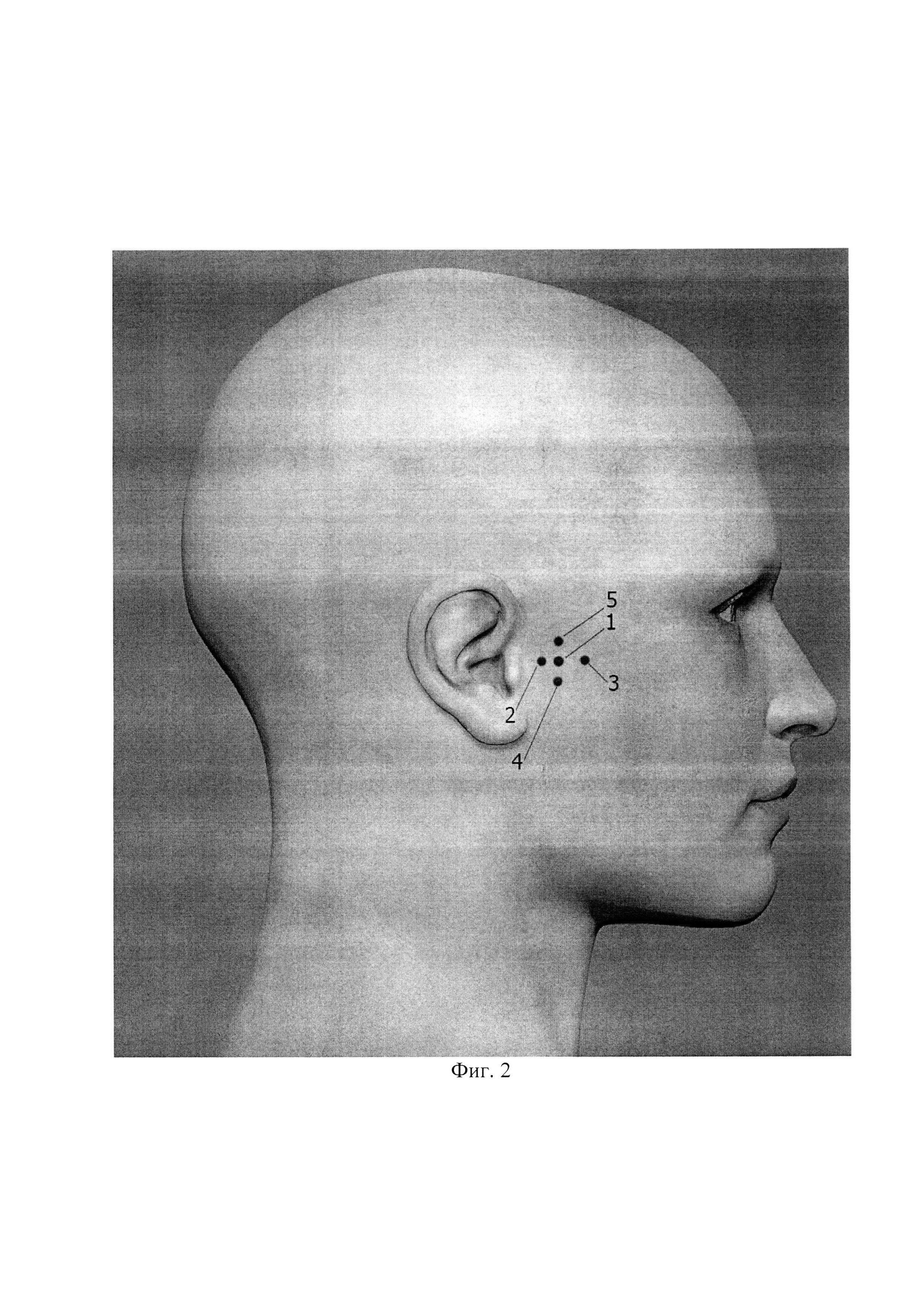 Способ лечения воспалительных и дегенеративно-дистрофических заболеваний височно-нижнечелюстного сустава