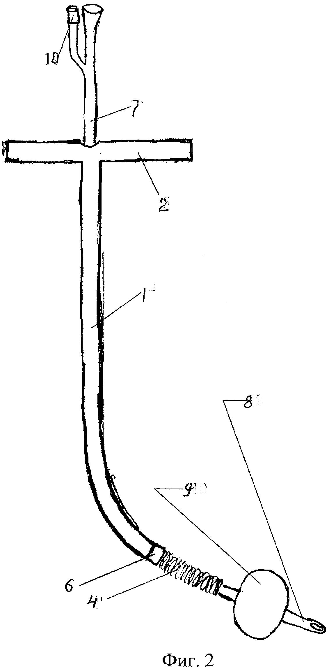 Способ доставки и установки уретрального стента в простатический отдел уретры