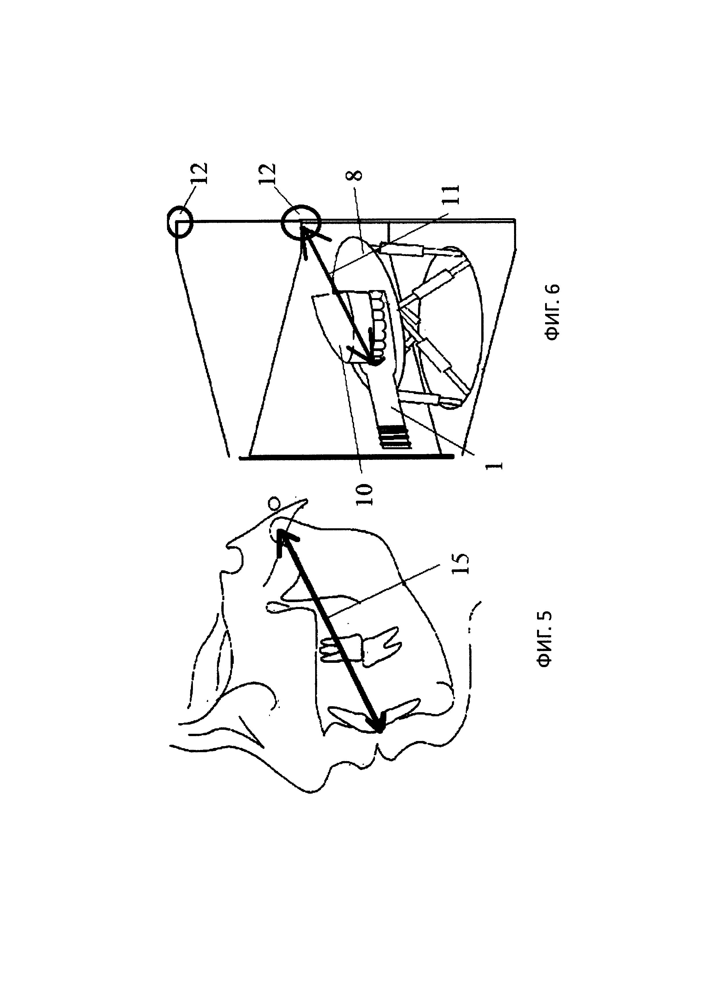 Способ пространственного переноса положения верхней челюсти с учетом индивидуальных параметров, окклюзионная вилка с определением положения в пространстве и приспособление для позиционирования модели верхней челюсти в пространстве для реализации этого способа