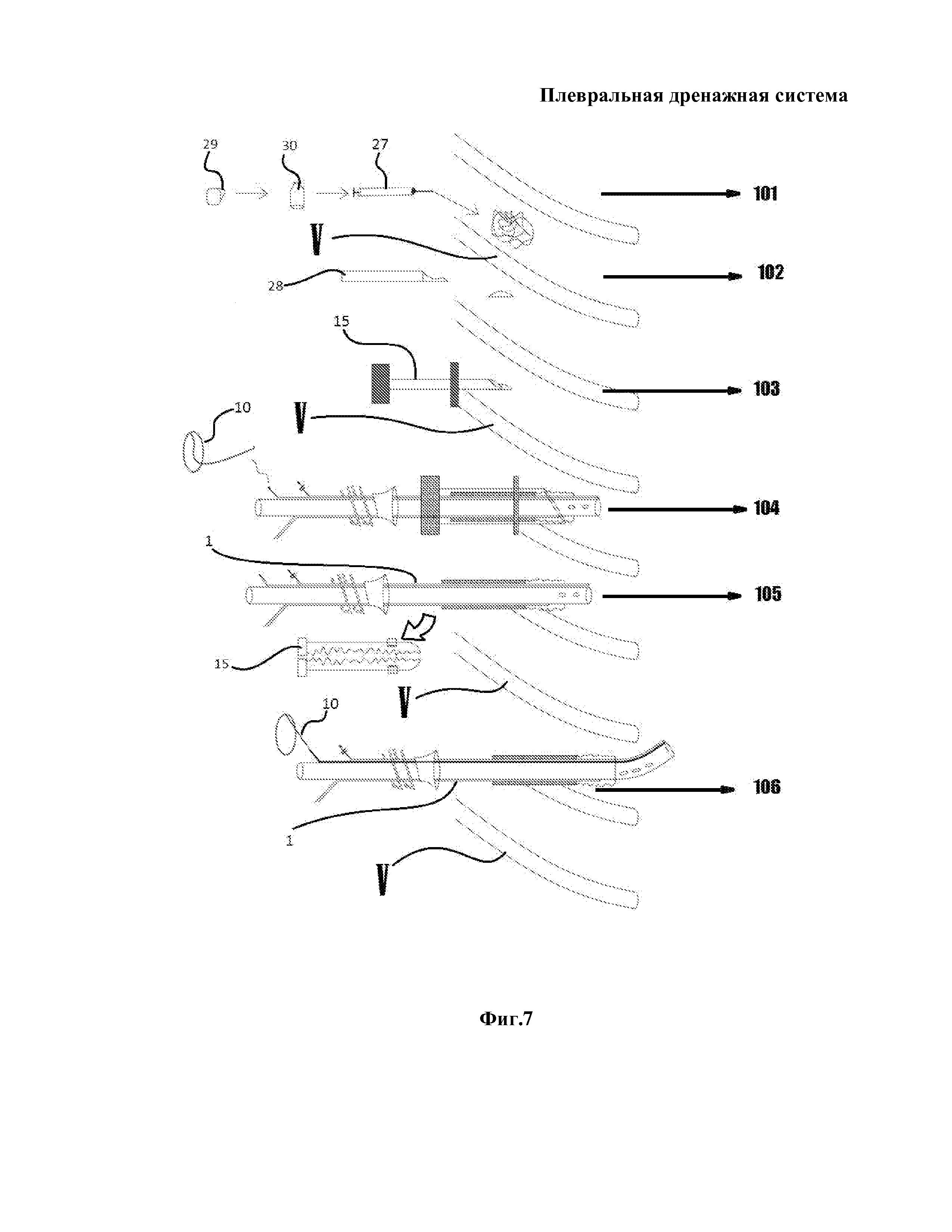 Плевральная дренажная система
