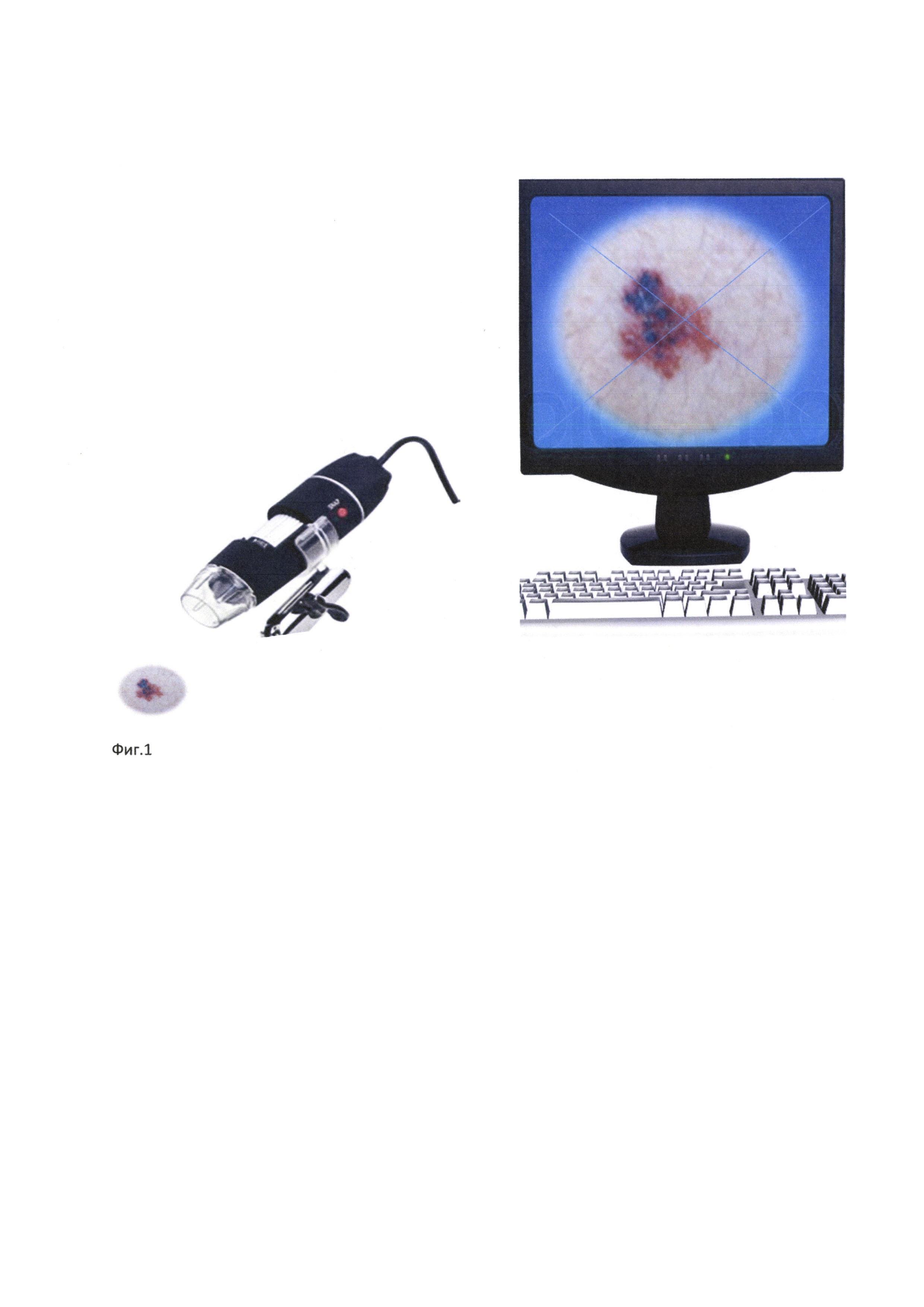 Способ ранней диагностики поверхностно распространяющихся меланом