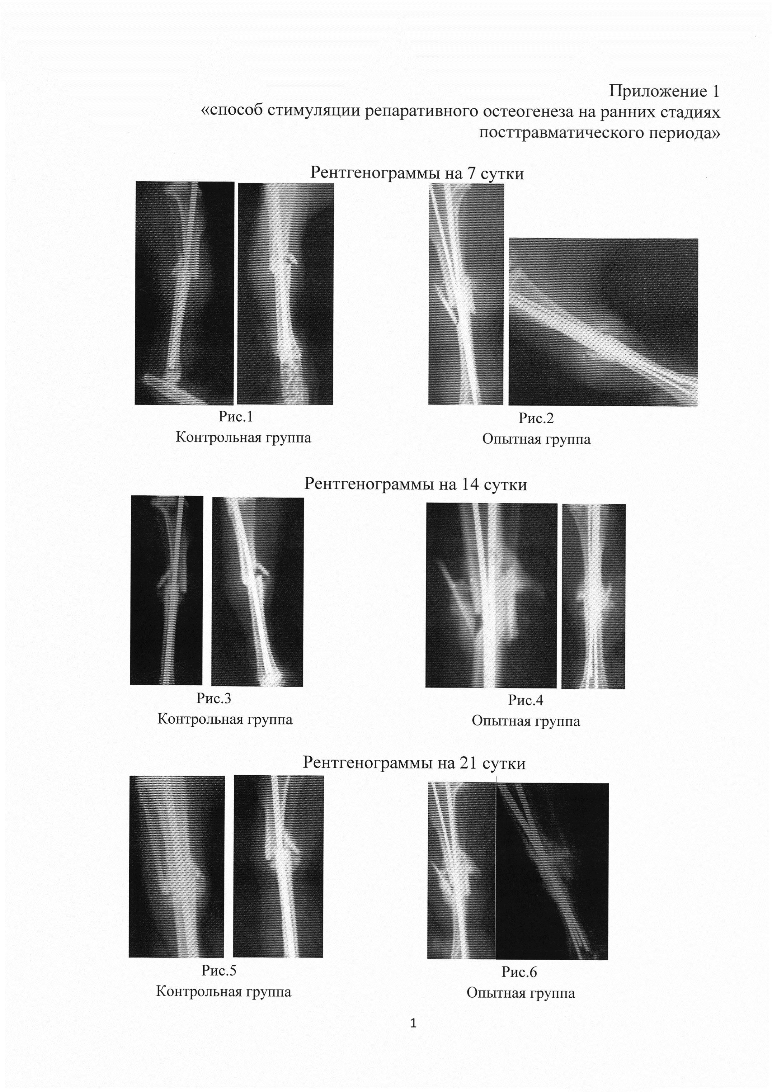 Способ стимуляции репаративного остеогенеза на ранних стадиях посттравматического периода