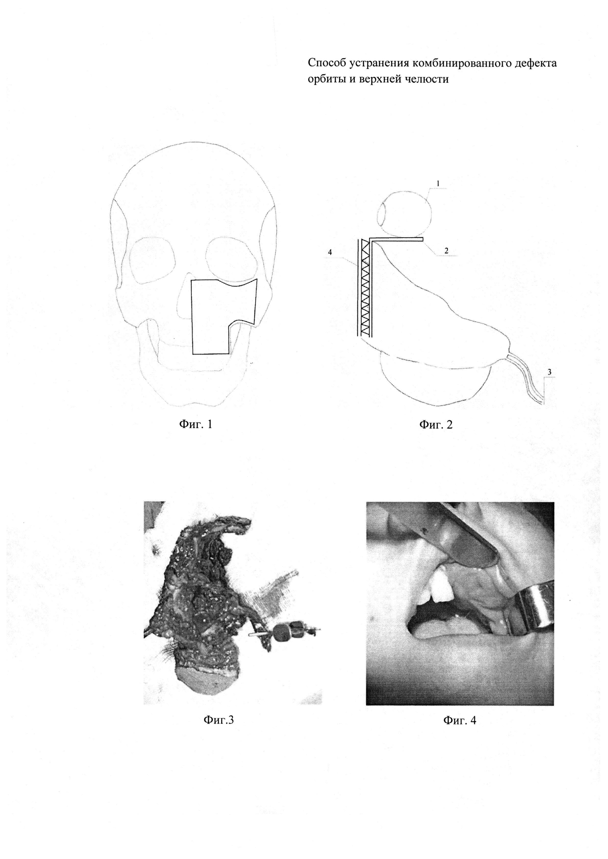 Способ устранения комбинированного дефекта орбиты и верхней челюсти