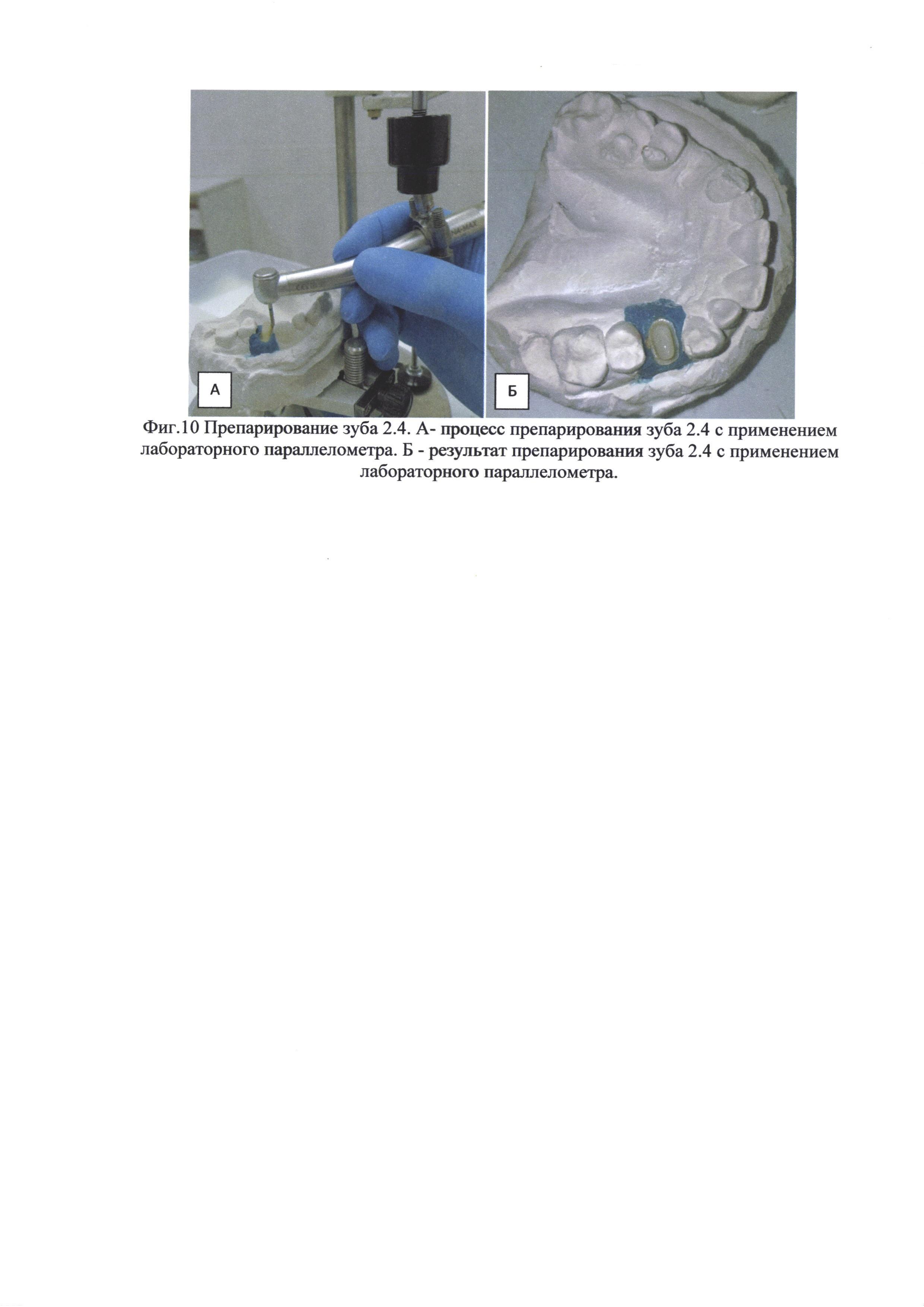 Способ внеротового одонтопрепарирования и изготовления провизорной коронки на реплантируемый зуб