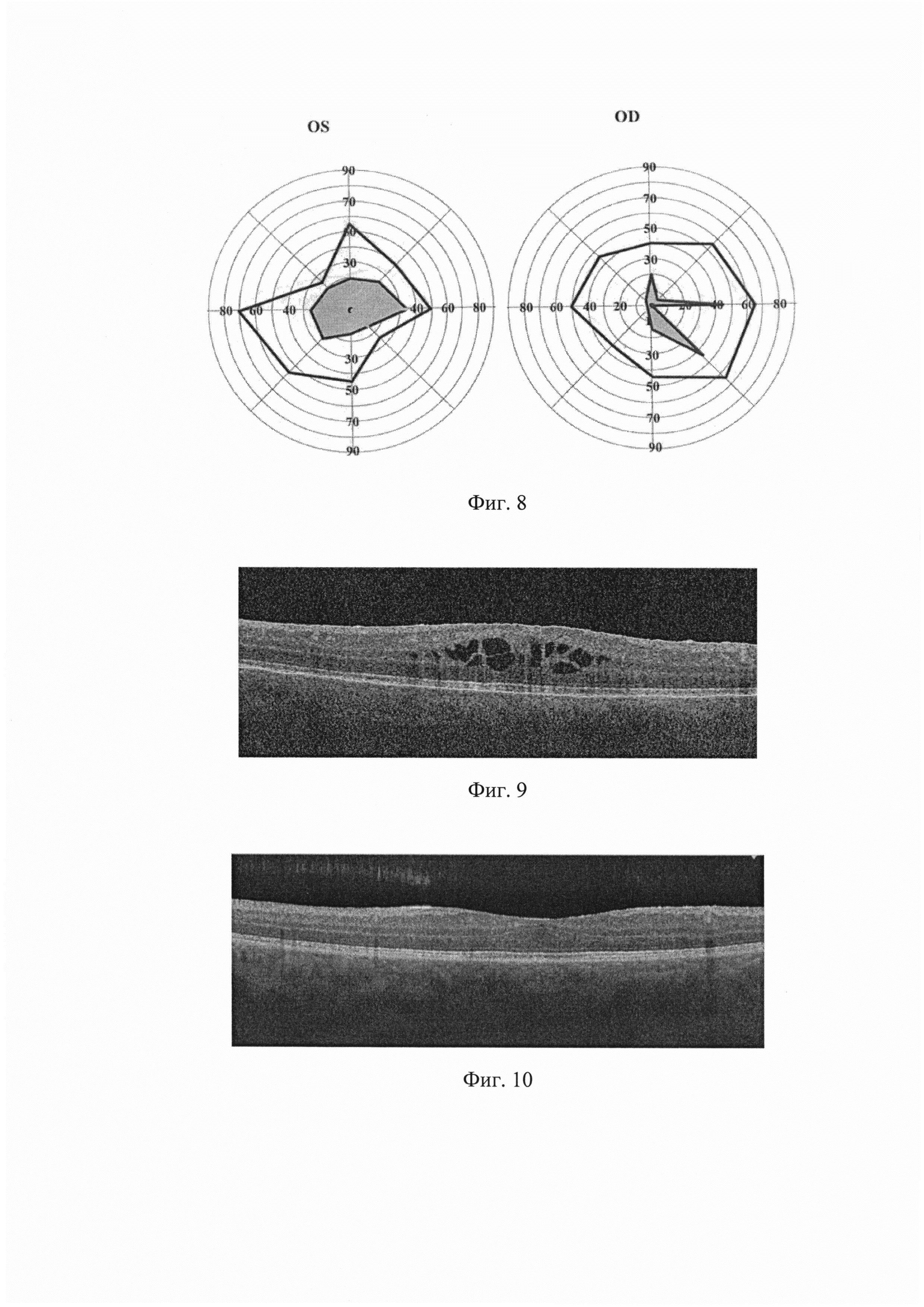 Способ лечения воспалительных или дистрофических заболеваний глаз