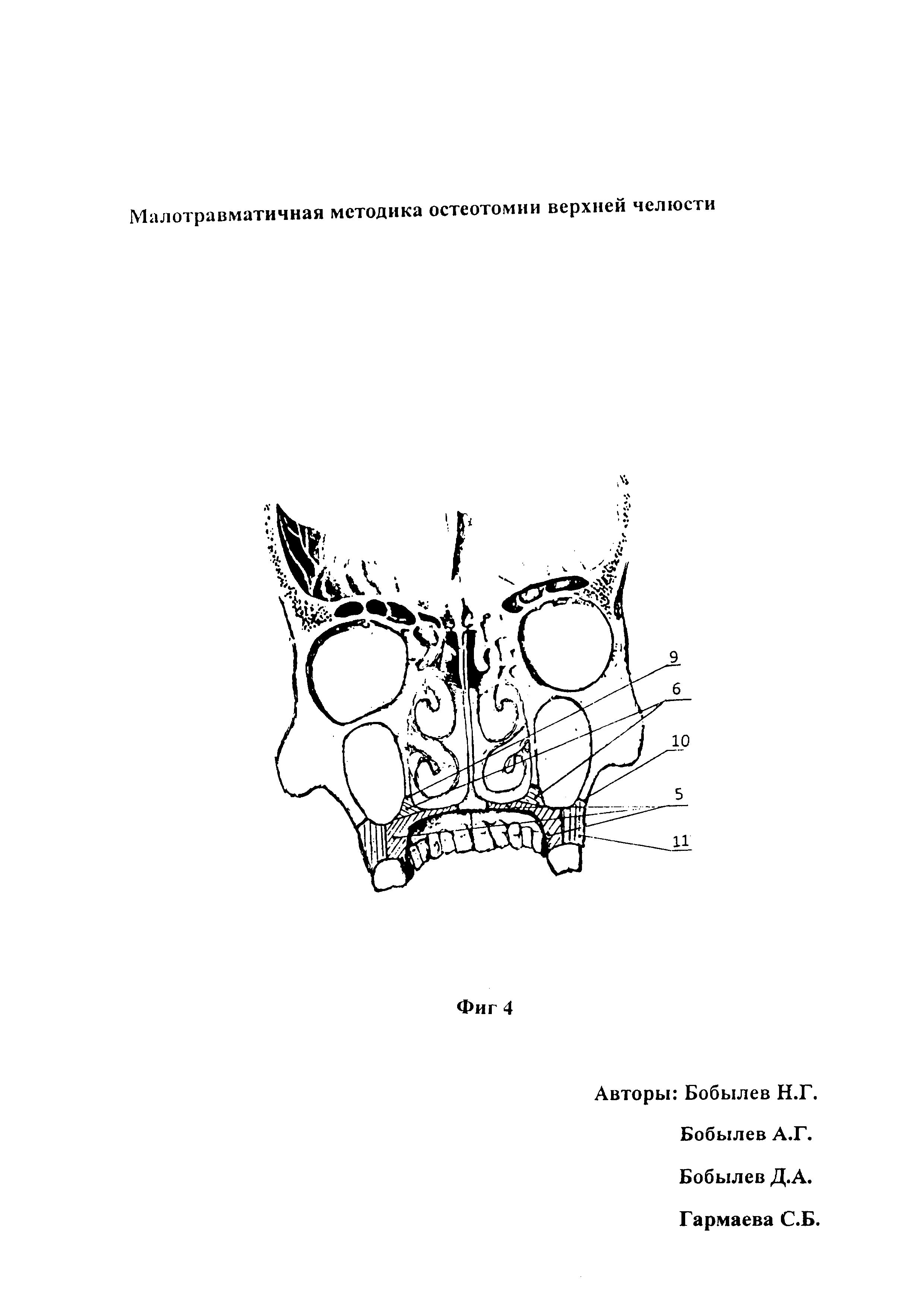Малотравматичная методика остеотомии верхней челюсти
