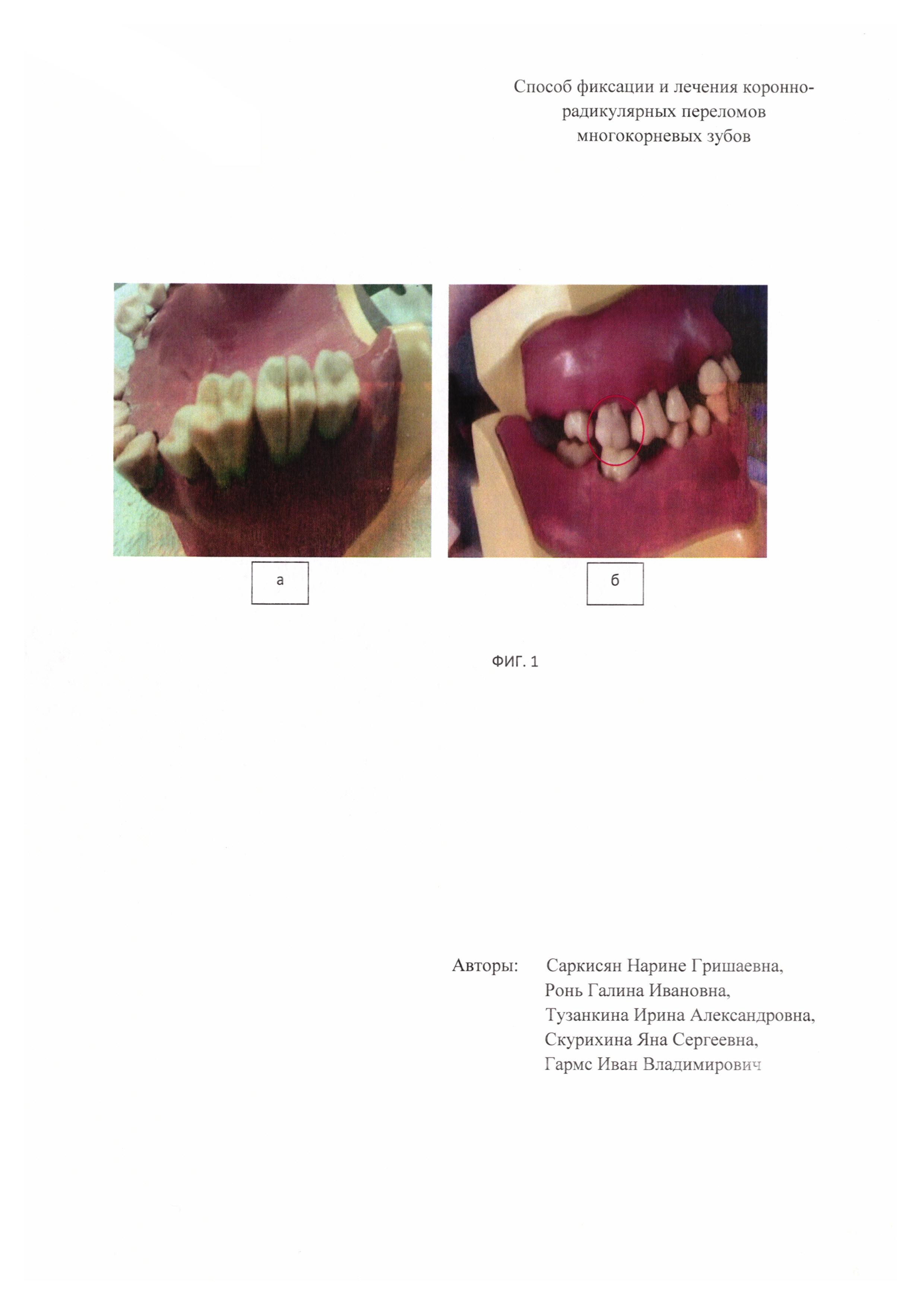 Стеклоиономерные цементы в стоматологии реферат 6961