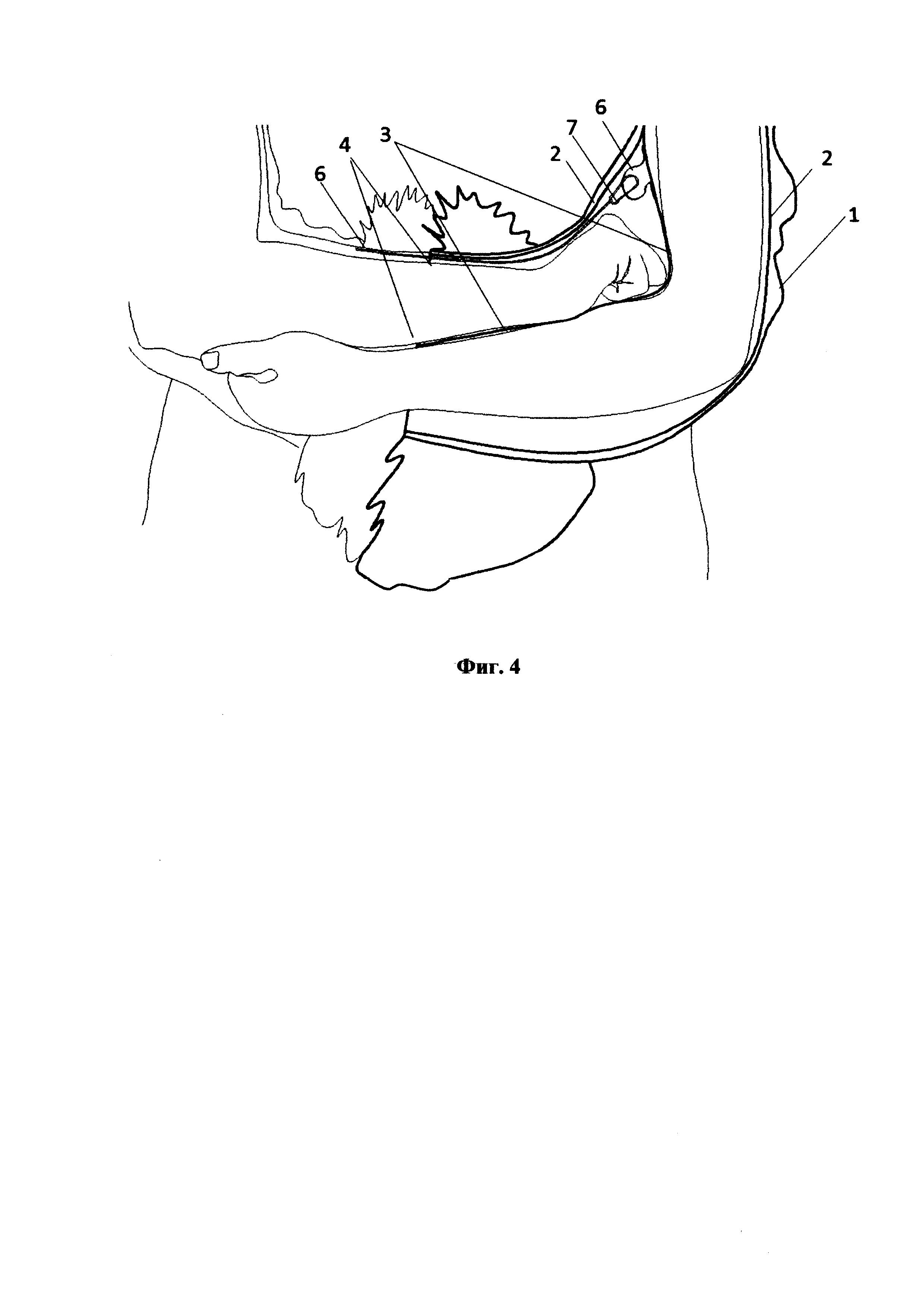 Конструкция рукава для зимней одежды