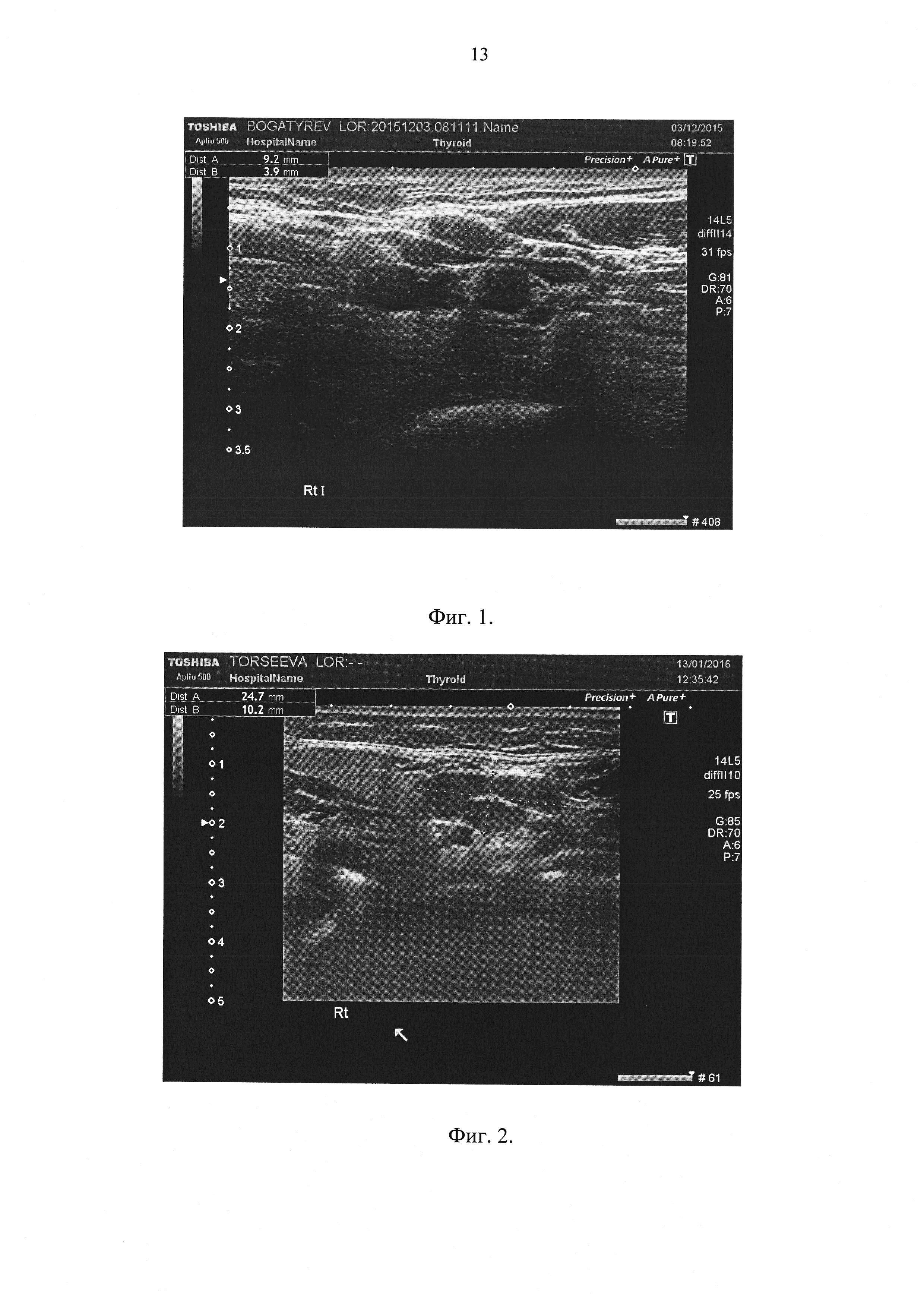 Способ дифференциальной диагностики клинической формы хронического тонзиллита, основанный на ультразвуковом исследовании регионарных лимфоузлов