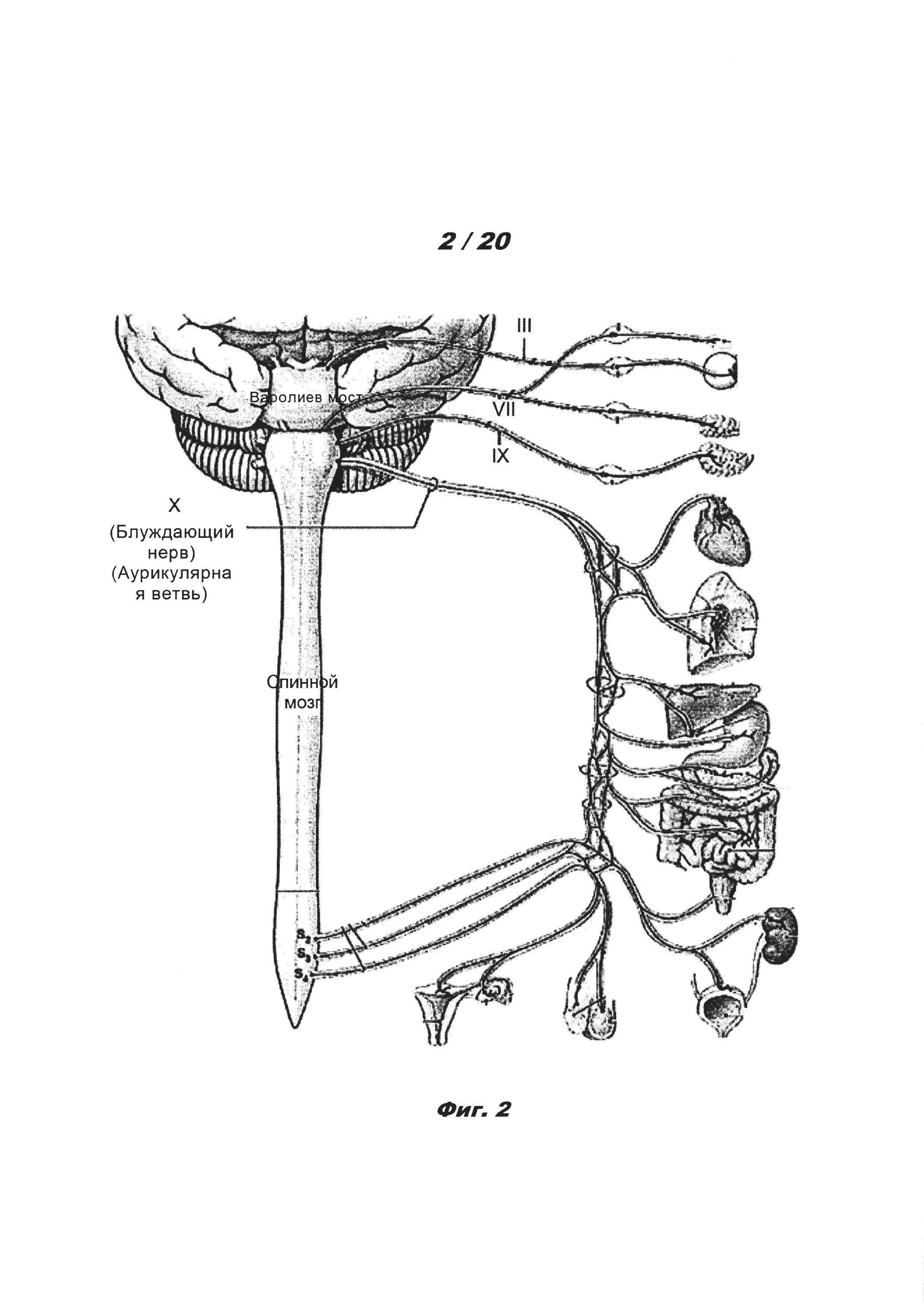 Способ лечения болезни аурикулярной анестезией черепных нервов