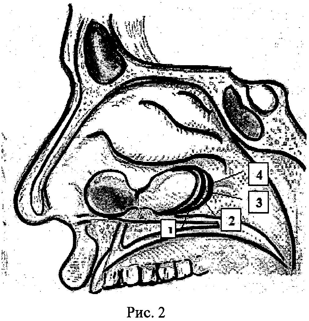 Реферат операции на околоносовых пазухах 1634