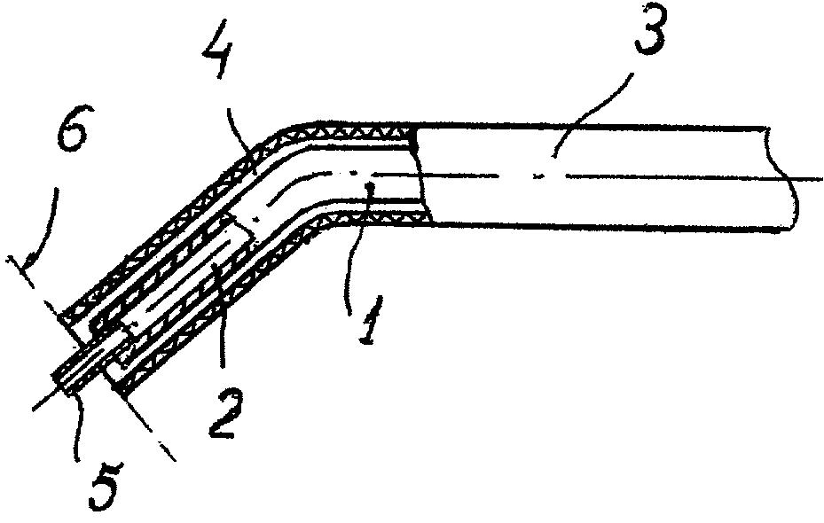 Способ увеличения угла передней камеры при глаукоме