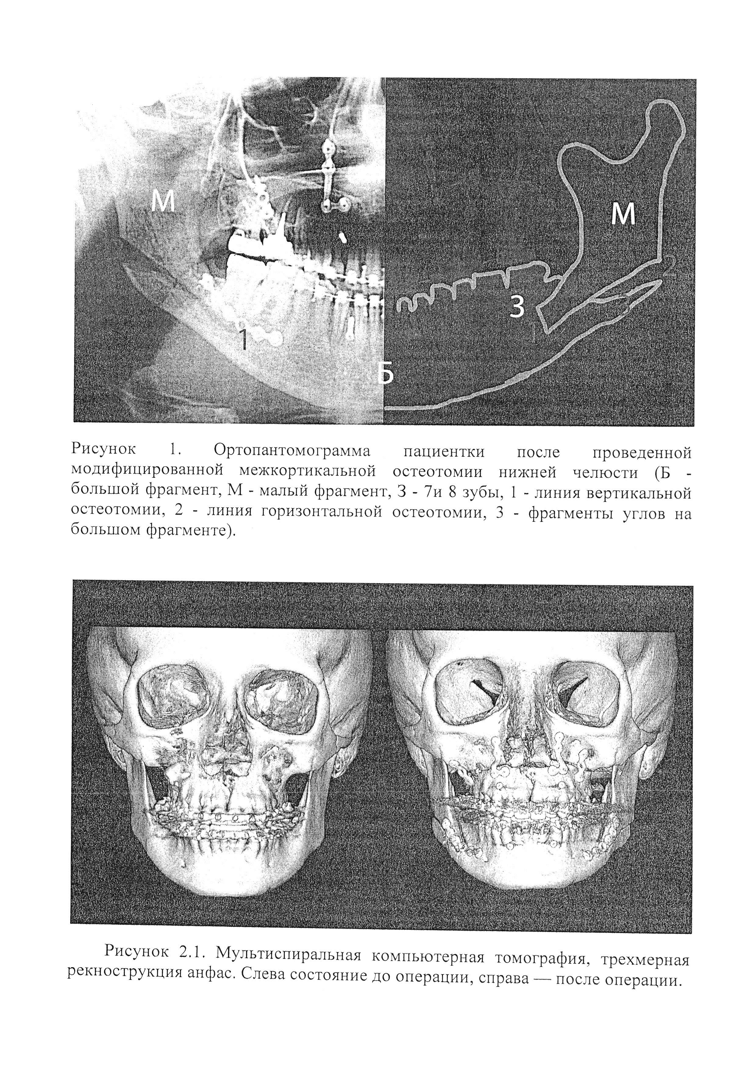 Способ межкортикальной остеотомии нижней челюсти