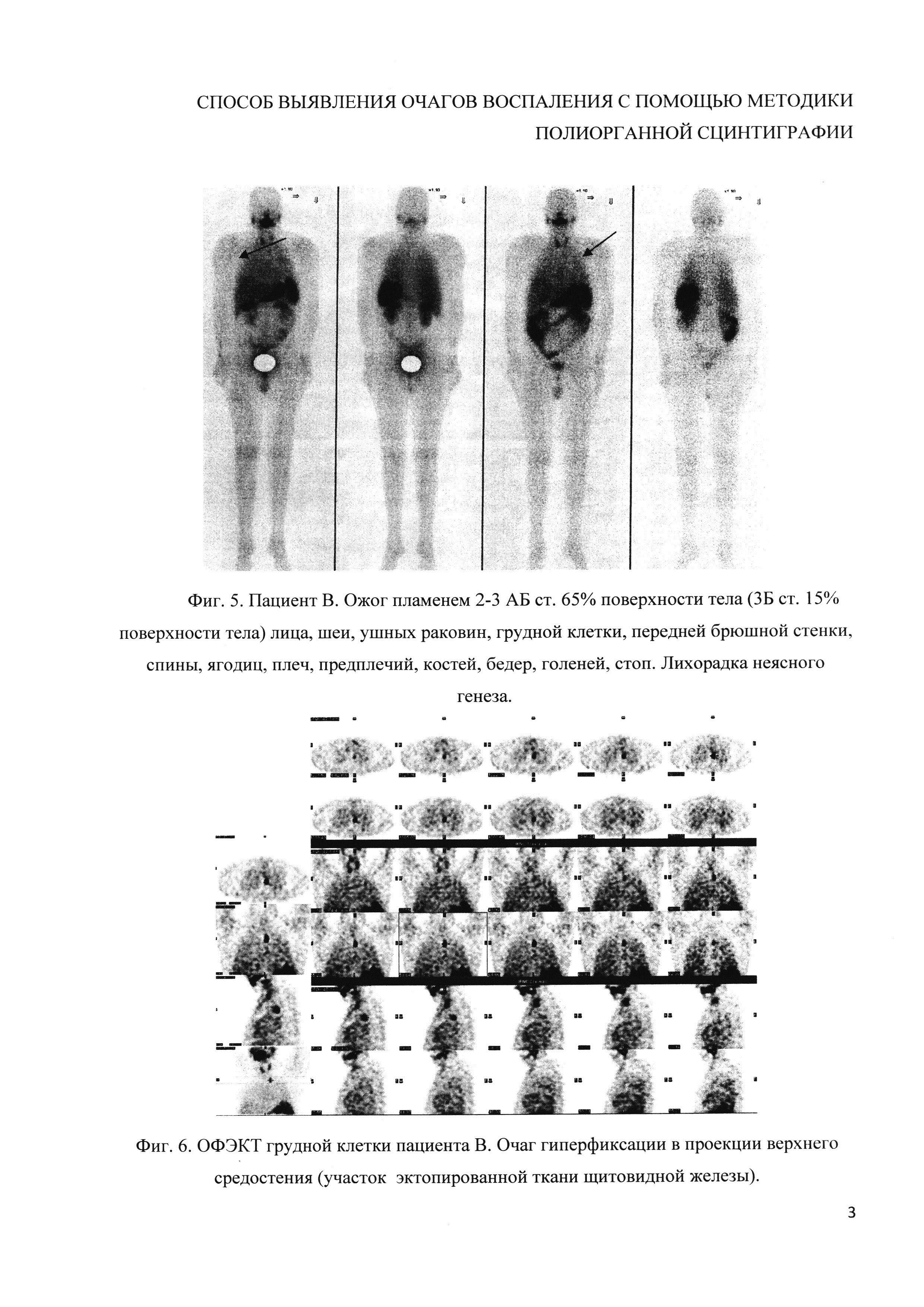 Способ выявления очагов воспаления с помощью методики полиорганной сцинтиграфии