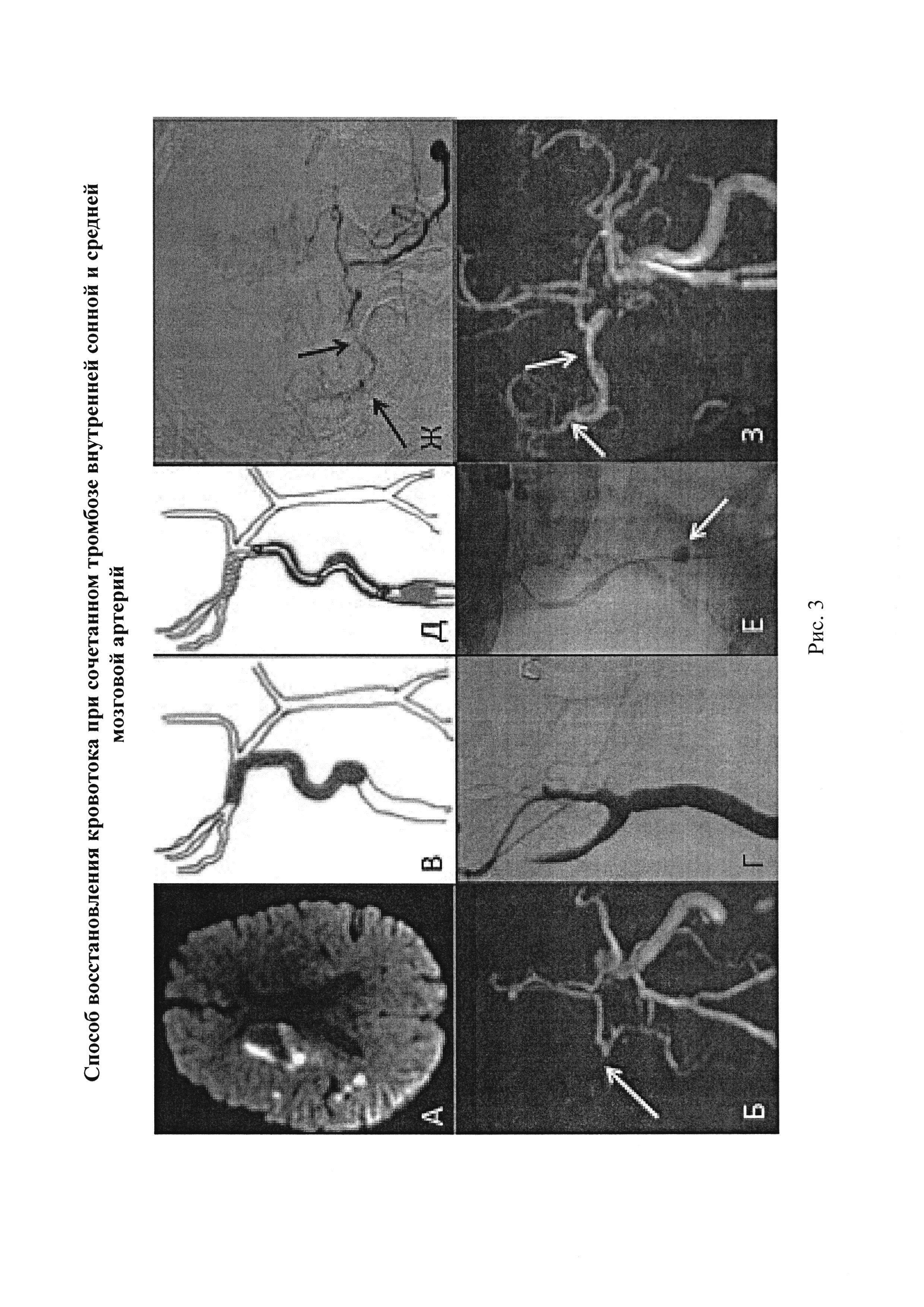 Способ восстановления кровотока при сочетанном тромбозе внутренней сонной и средней мозговой артерий