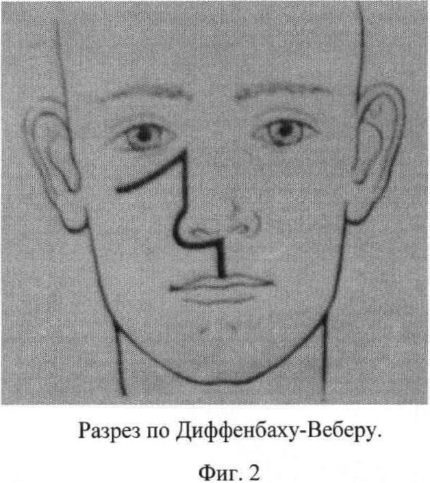 Способ хирургического доступа при резекции верхней челюсти