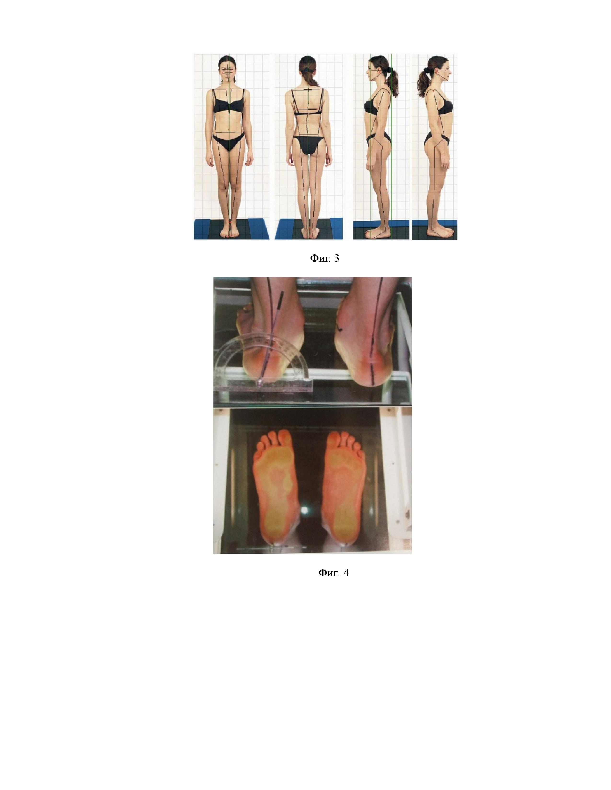 Способ и устройство для диагностики и коррекции опорной дисфункции