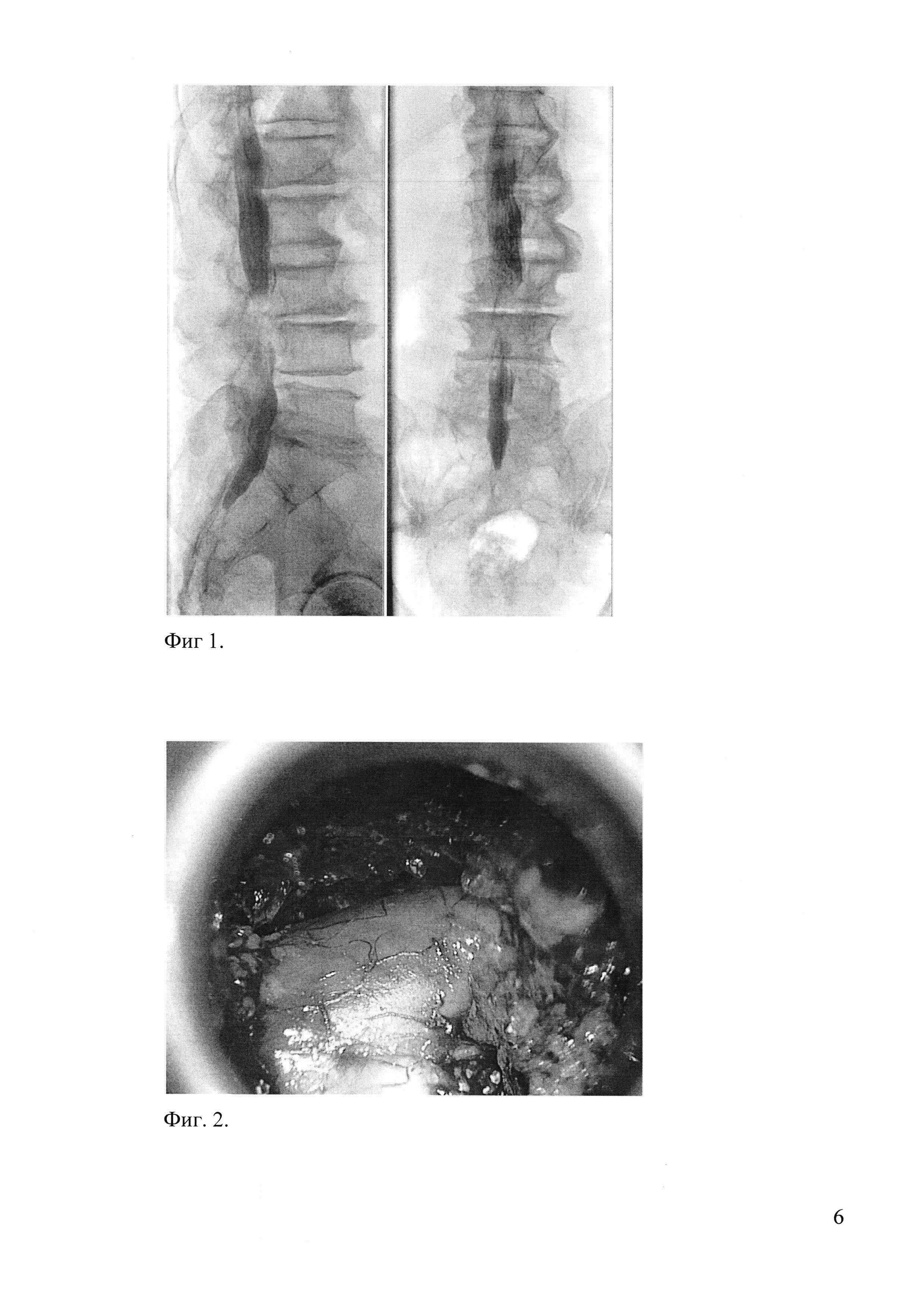 Способ лечения больных с поясничным спинальным стенозом