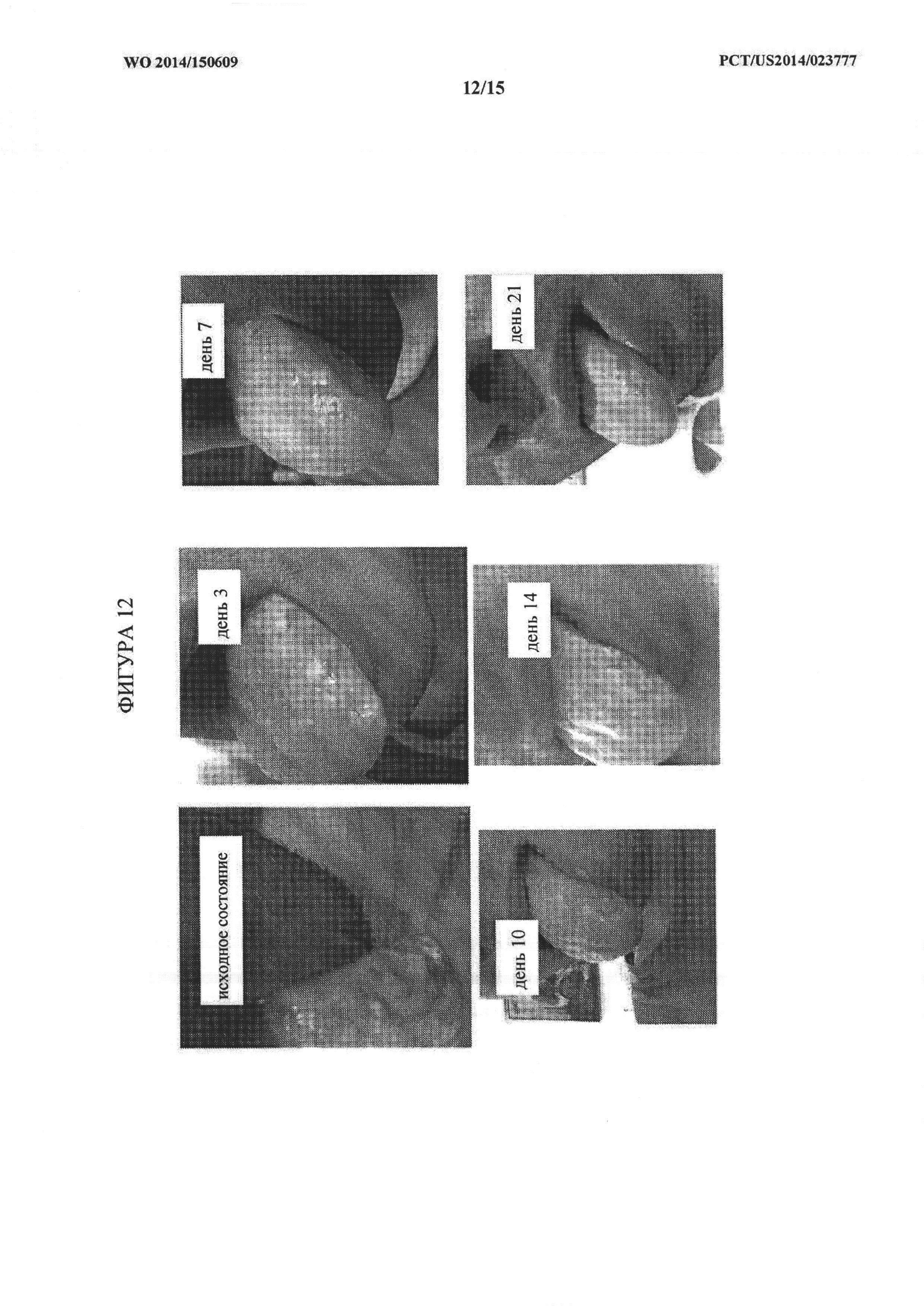 Влияние L тироксина на фигуру, ум и репродуктивную функцию