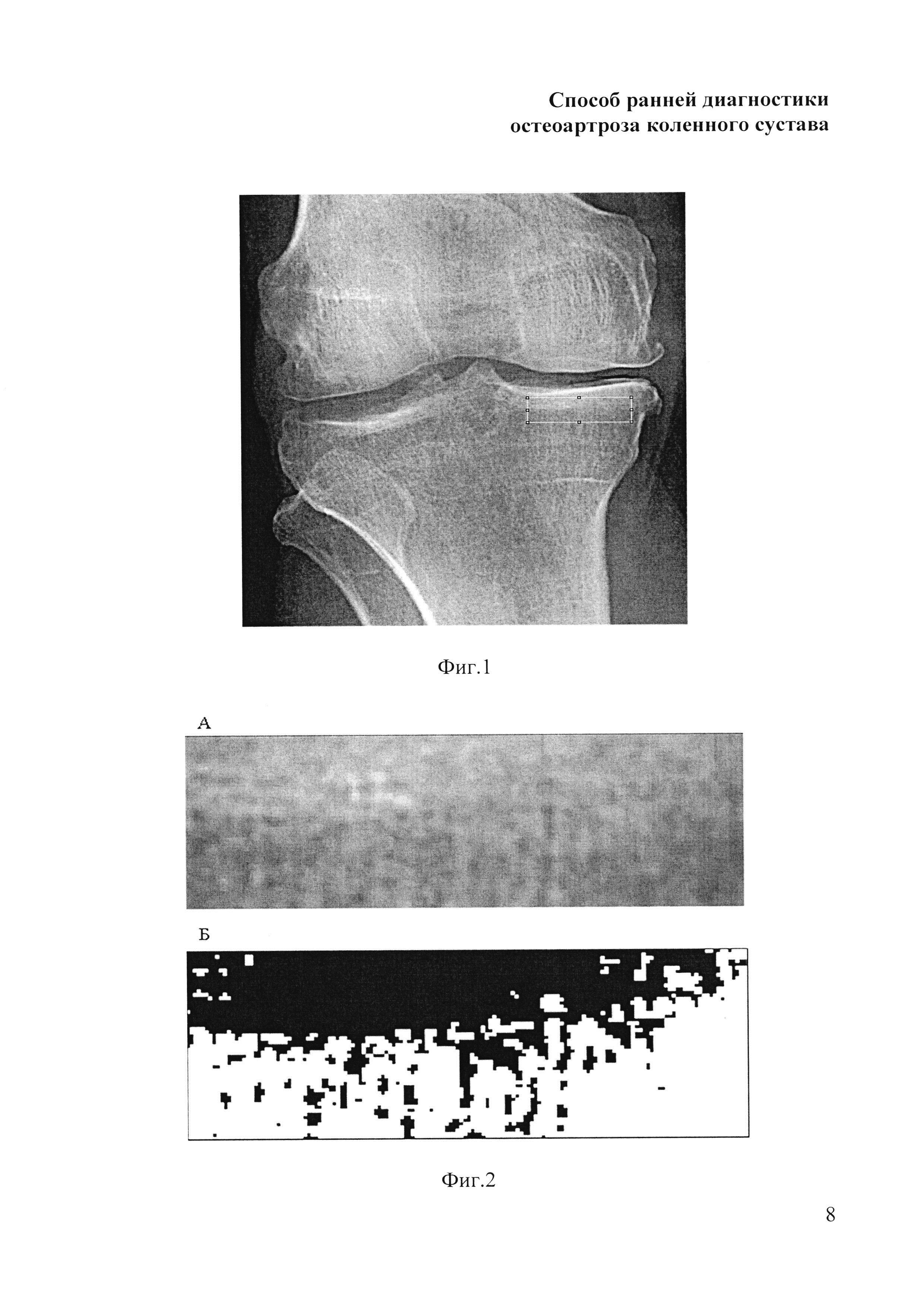 Способ ранней диагностики остеоартроза коленного сустава