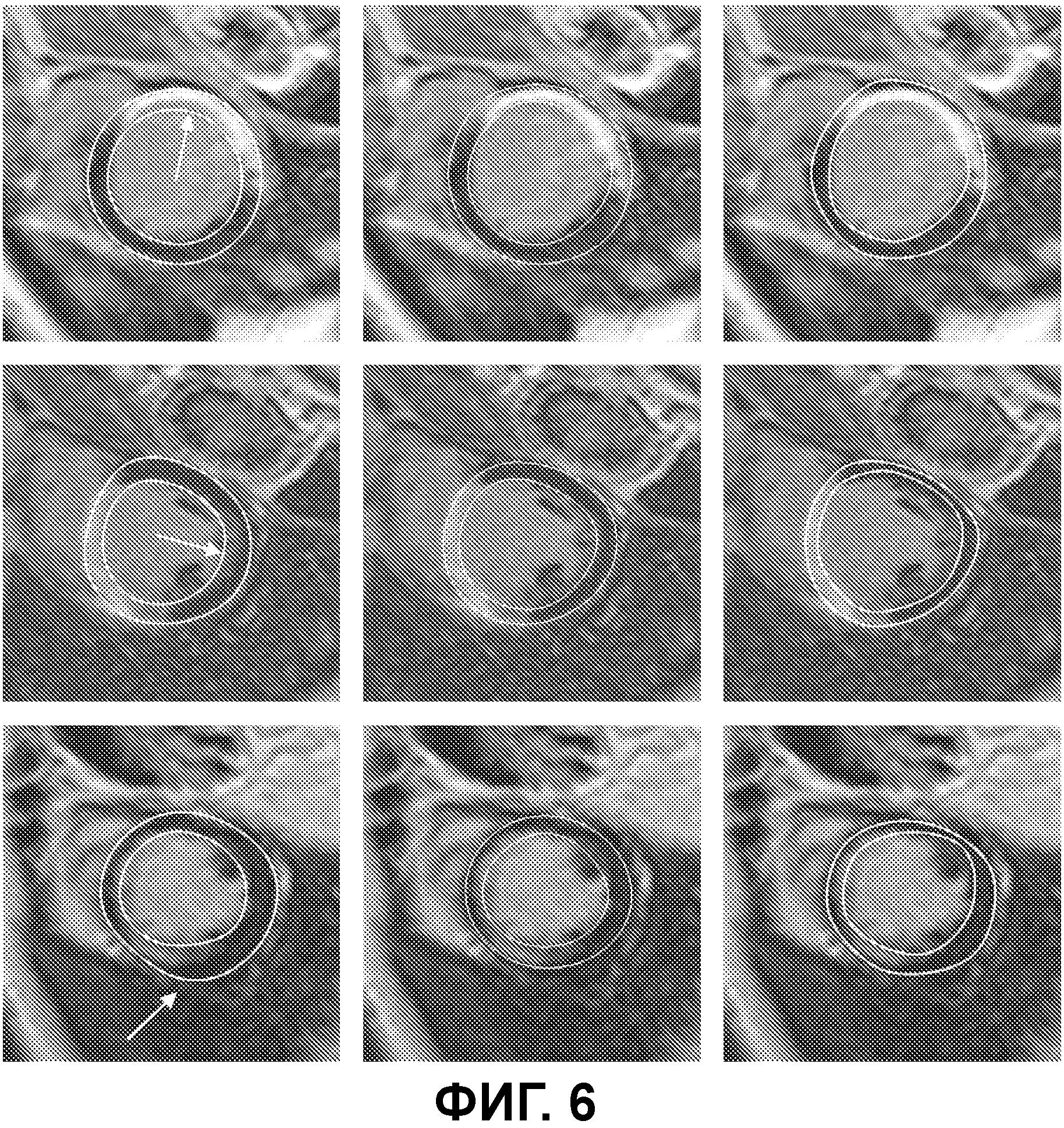 Автоматическая трехмерная сегментация изображения сердца по короткой оси, полученного методом магнитно-резонансной томографии с отложенным контрастированием