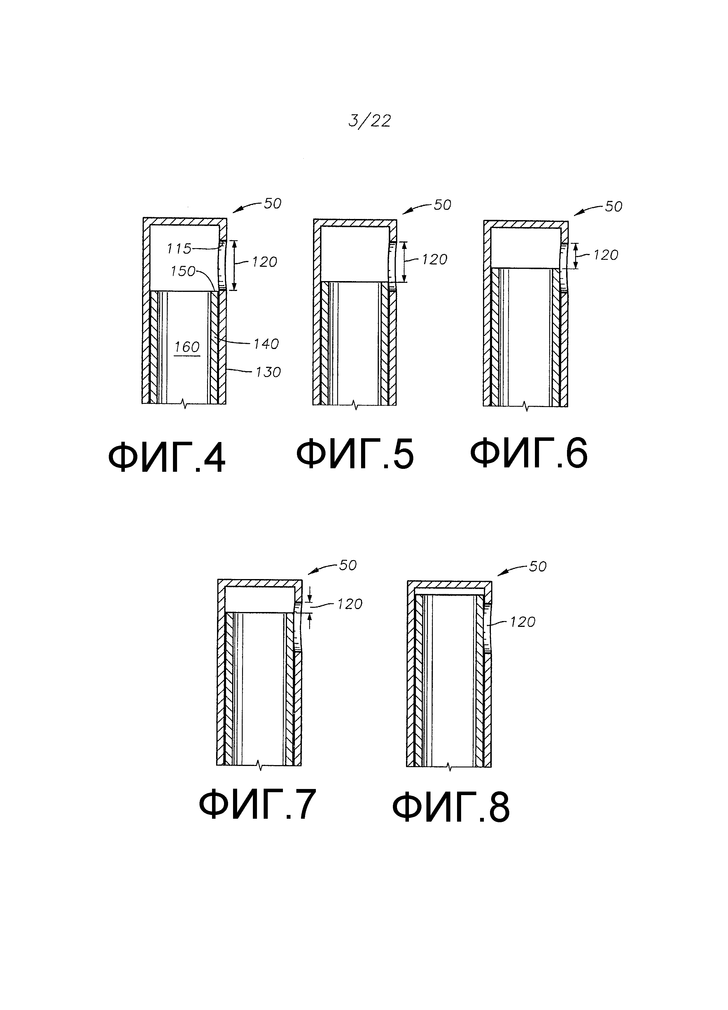 Зонд для витрэктомии с регулируемым размером канала режущего инструмента