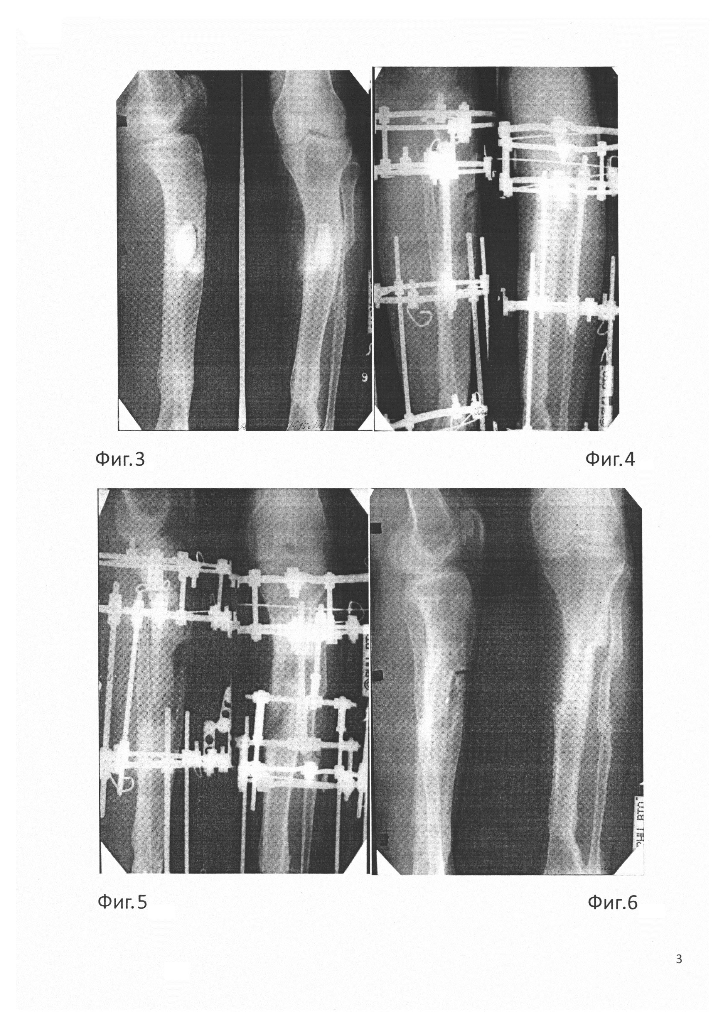 Способ оперативного лечения хронического остеомиелита