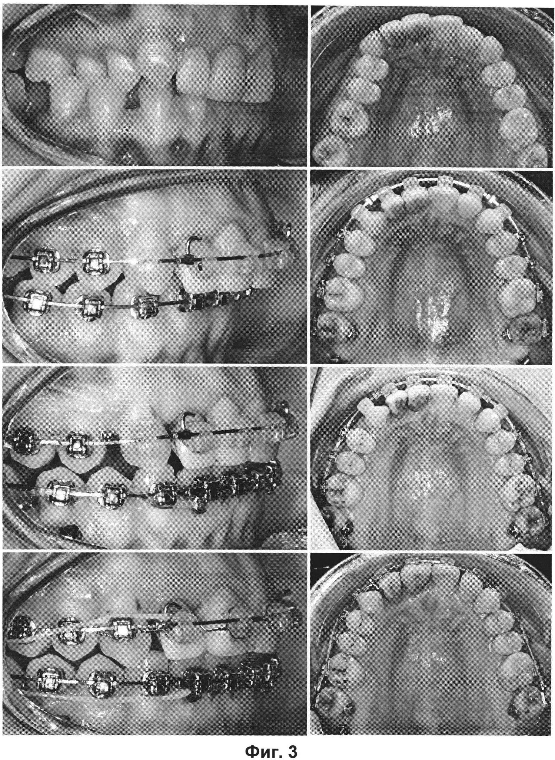 Способ дистализации боковой группы зубов верхней челюсти