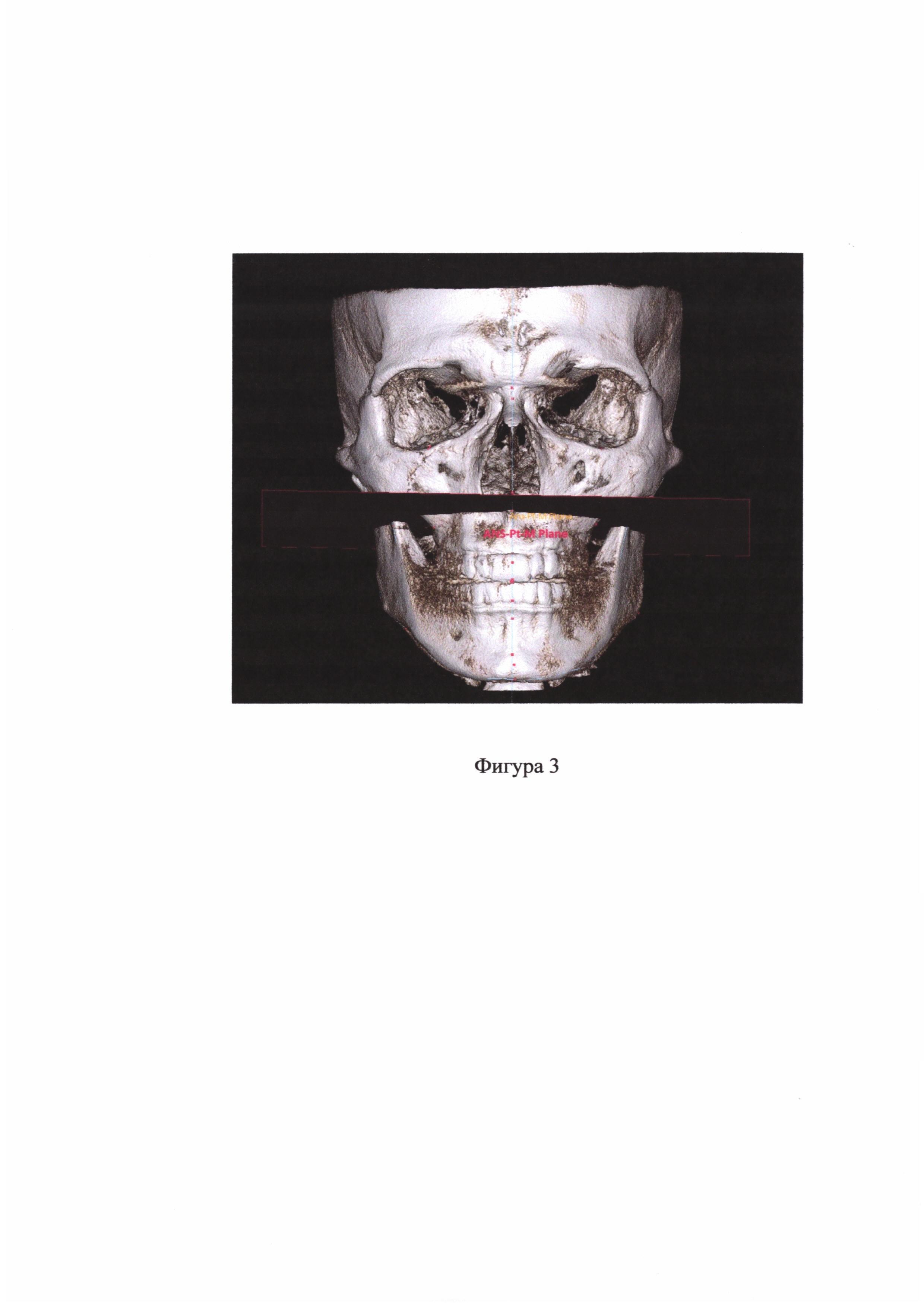 Способ определения положения верхней челюсти