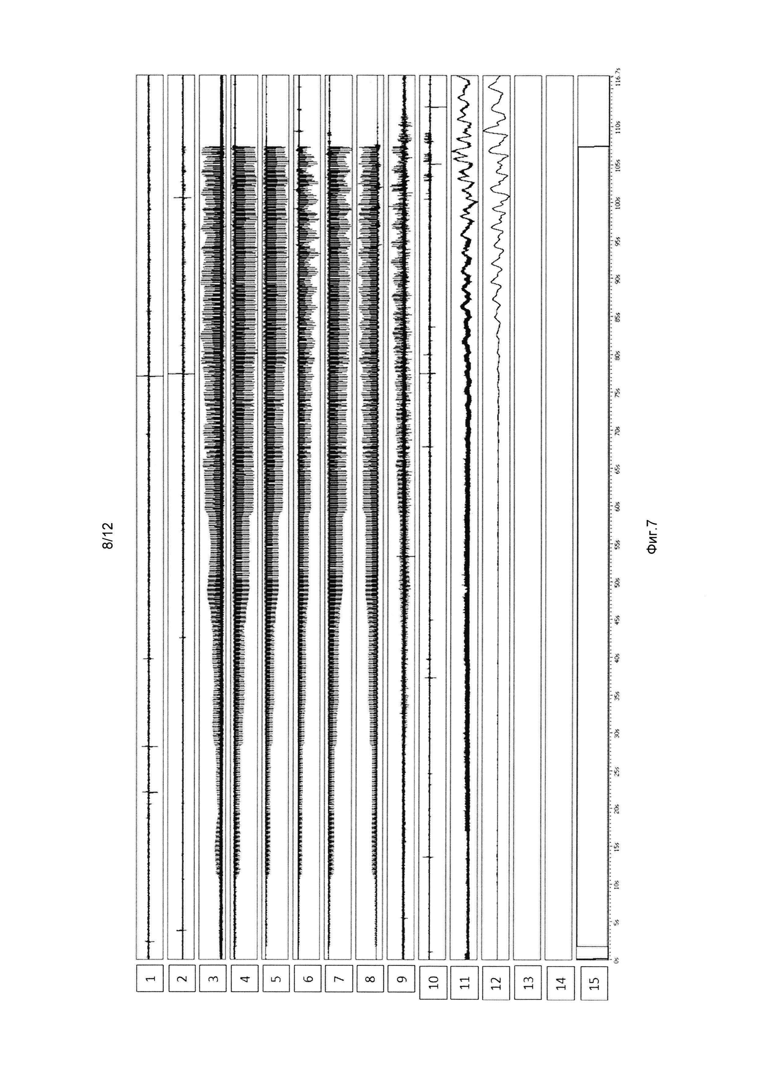 фото строение мошонкина