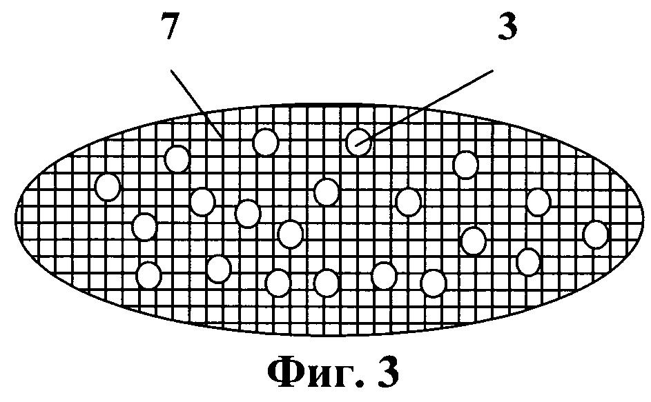Липосомальное противовирусное средство на основе интерферона альфа-2b человека в капсулированной форме для вагинального применения