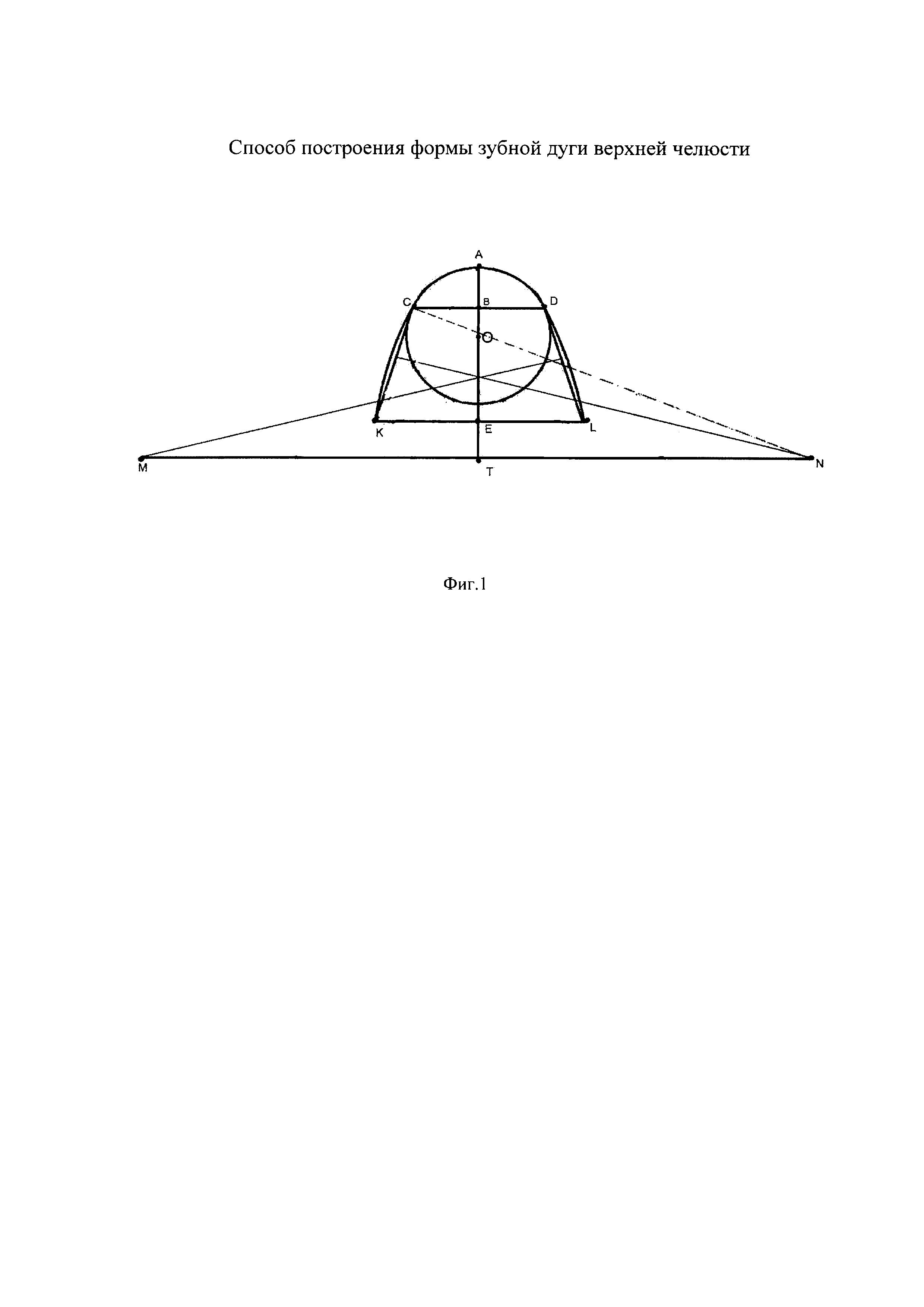 Способ построения формы зубной дуги верхней челюсти