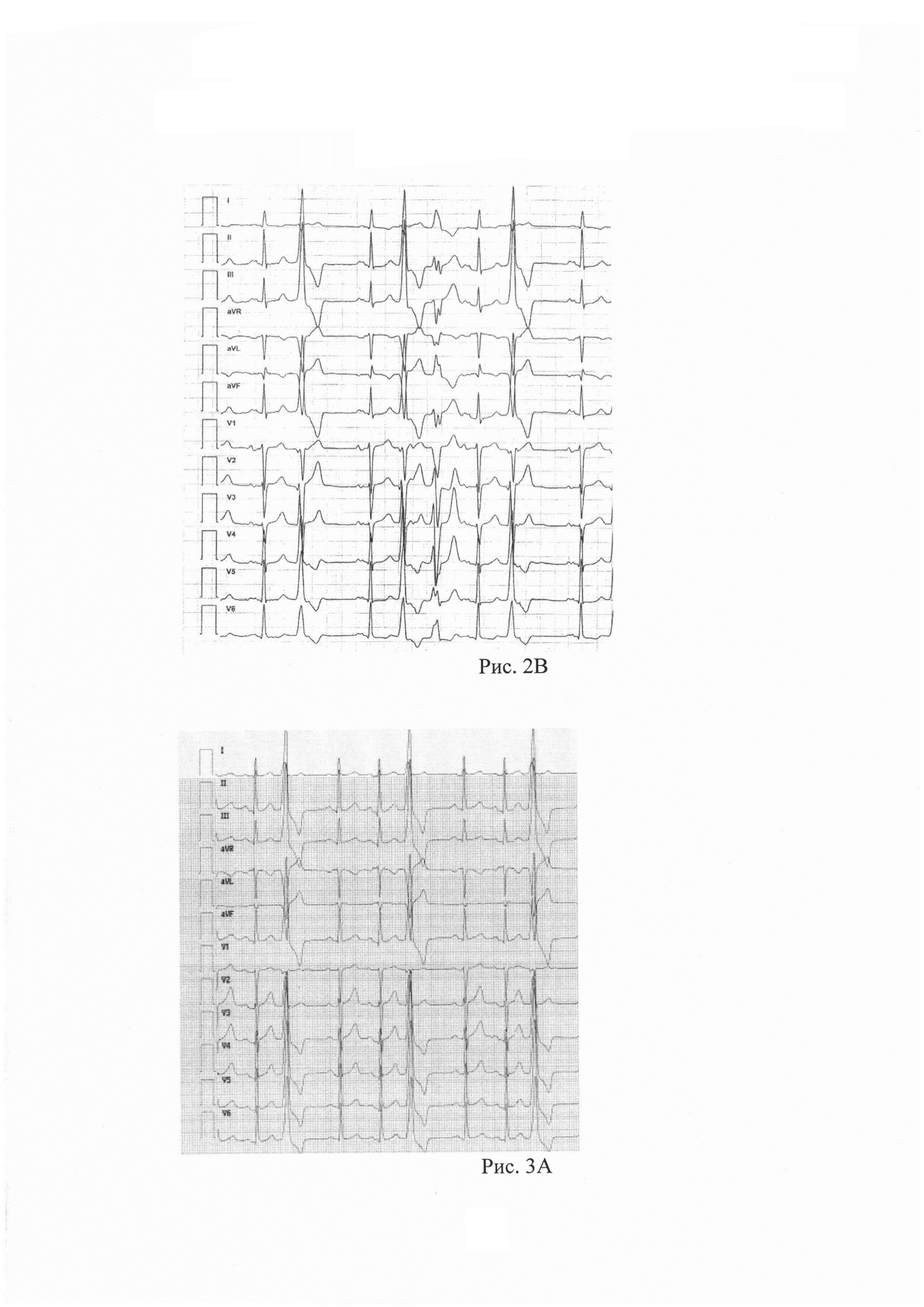 Способ дифференциации стрессиндуцированной и стрессингибированной желудочковой эктопии при проведении пробы с физической нагрузкой