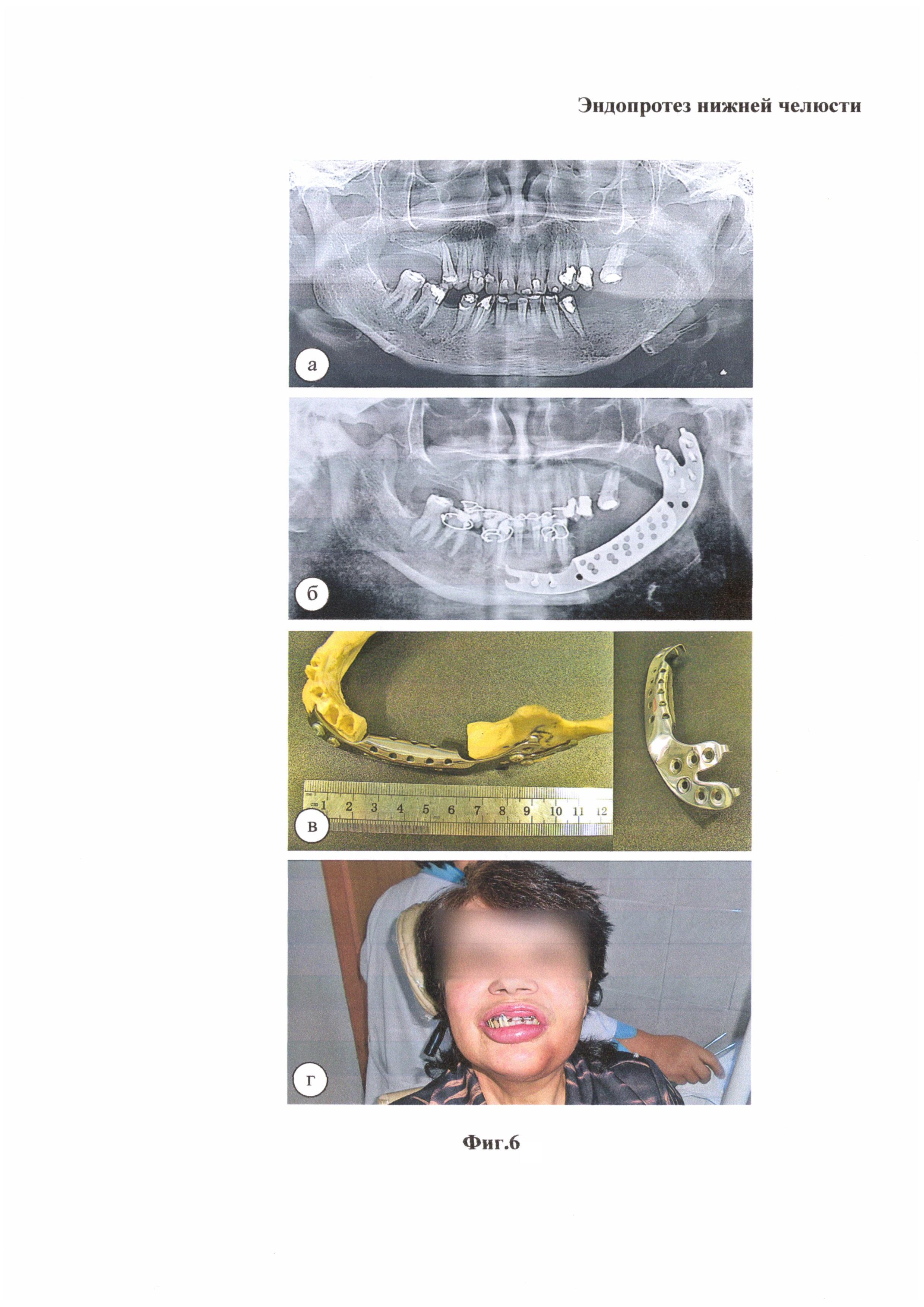 Эндопротез нижней челюсти